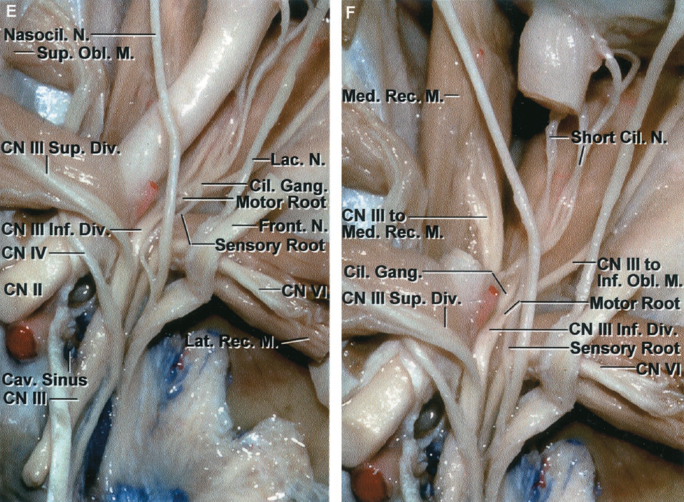 FIGURE 7.2. E-F. Superior view of a stepwise dissection of the neural structures in the orbit and superior orbital fissure. E, the annular tendon has been divided in the interval between the origin of the superior and lateral rectus muscles. The oculomotor, abducens, and nasociliary nerves pass through the superior orbital fissure and annular tendon. The oculomotor nerve splits into superior and inferior divisions. The superior division branches on the lower surface of the superior rectus and sends branches along the medial margin of the superior rectus muscle to enter the levator muscle. The fibers of the inferior division give riseto three branches. One passes below the optic nerve to supply the medial rectus muscle, another enters the superior surface of the inferior rectus muscle, and the third branch courses along the lateral margin of the inferior rectus muscle to innervate the inferior oblique muscle. The branch to the inferior oblique muscle gives rise to the motor(parasympathetic) root to the ciliary ganglion. The nasociliary nerve arises from themedial surface of the ophthalmic nerve and gives rise to the sensory root of the ciliary ganglion. Short ciliary nerves arise from the ciliary ganglion and enter the globe around the optic nerve. The abducens nerve courses on the medial side of the ophthalmic nerve in the cavernous sinus, but it passes below the ophthalmic nerve in the superior orbital fissure to enter the medial surface of the lateral rectus muscle. F, a segment of the orbital portion of the optic nerve has been removed. This exposes the branch of the inferior division of the oculomotor nerve, which passes below the optic nerve and enters the medial rectus muscle. The short ciliary nerves arise from the ciliary ganglion and enter the globe around the margin of the optic nerve. A., artery; Ant., anterior; Car., carotid; Cav., cavernous; Cil., ciliary; Clin., clinoid; CN, cranial nerve; Div., division; Eth., ethmoidal; Falc., falciform; Front., fron