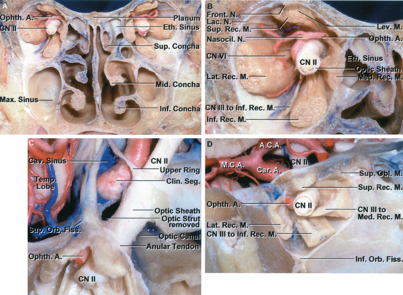 FIGURE 7.4. A-D. A, coronal section of orbits and cranial base anterior to the orbital apex. The floor of the orbit faces the maxillary sinus and the medial wall faces the ethmoid air cells. The inferior concha is a separate bone attached to the medial maxillary wall. The middle turbinate, an appendage of the ethmoid bone, attaches to the lateral nasal wall at the level of the roof of the maxillary sinus. B, enlarged view of right side shown in A. The ophthalmic artery enters the orbit on the lateral side of the optic nerve and crosses medially above the nerve. The abducens nerve enters the medial surface of the lateral rectus muscle. The optic nerve is enclosed in the optic sheath. The nerve to the inferior oblique muscle courses along the lateral edge of the inferior rectus muscle. C, anterosuperior view showing the relationship of the orbital apex to the optic strut, optic canal, and superior orbital fissure. The optic strut, which has been removed, separates the optic nerve in the optic canal from the superior orbital fissure. The optic nerve enters the orbit on the medial side of the optic strut and the oculomotor, trochlear, abducens, and ophthalmic nerves enter the orbit on the lateral side of the strut. The rectus muscles arise from the annular tendon, which encircles the optic canal and the central part of the superior orbital fissure. The anterior clinoid process has been removed to expose the clinoid segment of the internal carotid artery. The upper dural ring surrounds the carotid artery at the upper edge of the clinoid segment. D, cross section of right orbit just in front of the apex. The ophthalmic artery enters the orbit on the lateral side of the optic nerve. The branch of the inferior division of the oculomotor nerve to the medial rectus muscle passes below the optic nerve.