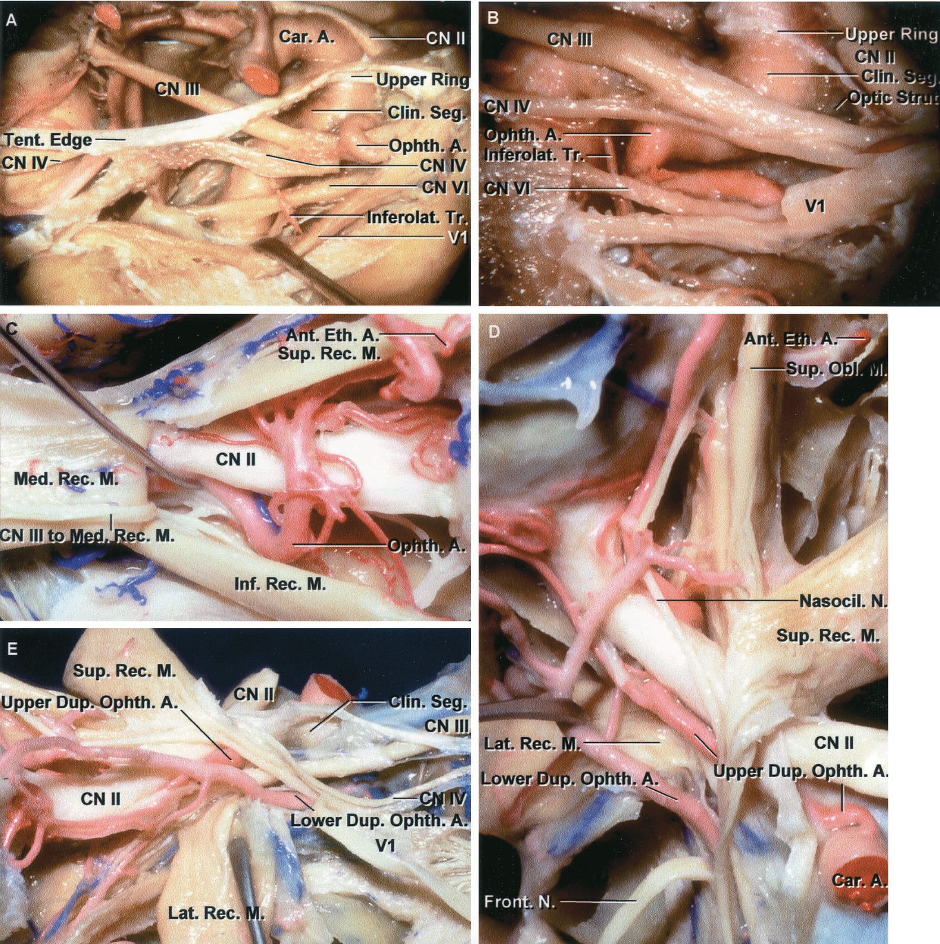 FIGURE 7.6. Anomalies of the ophthalmic artery. A, right ophthalmic artery origin from the clinoid segment of the internal carotid artery. The ophthalmic artery usually arises just above the clinoid segment, but in this case, the artery arises from the clinoid segment below the anterior clinoid process, which has been removed. The artery passes through the superior orbital fissure between the oculomotor and ophthalmic nerves. The lateral wall of the right cavernous sinus and the anterior clinoid process have been removed to expose the intracavernous and clinoid segments of the internal carotid artery, and the ophthalmic nerve has been retracted to expose the inferolateral trunk. B, ophthalmic artery origin in the cavernous sinus. Lateral aspect of a right ophthalmic artery that arises from the intracavernous segment of the left internal carotid artery. The upper half of a segment of the ophthalmic nerve has been removed to expose an ophthalmic artery. The anterior clinoid artery has been removed to expose the clinoid segment in the interval between the optic and oculomotor nerves. C, the medial rectus muscle has been divided near the globe and reflected posteriorly to expose an ophthalmic artery that courses below the optic nerve to reach the medial part of the orbit, as occurs in approximately 15% of orbits. The branch of the inferior division of the oculomotor nerve to the medial rectus muscle enters the medial side of the muscle. The anterior ethmoidal artery courses below the superior oblique muscle to reach the anterior ethmoidal canal. D and E, duplicate left ophthalmicarteries. D, superior aspect of a duplicate ophthalmic artery. The levator and superior rectus muscles have been reflected medially and the lateral rectus muscle has been reflected laterally to expose the left optic nerve and the duplicate arteries. The upper duplicate artery arises from the supraclinoid segment of the internal carotid artery, passes through the optic canal to enter the orbital 