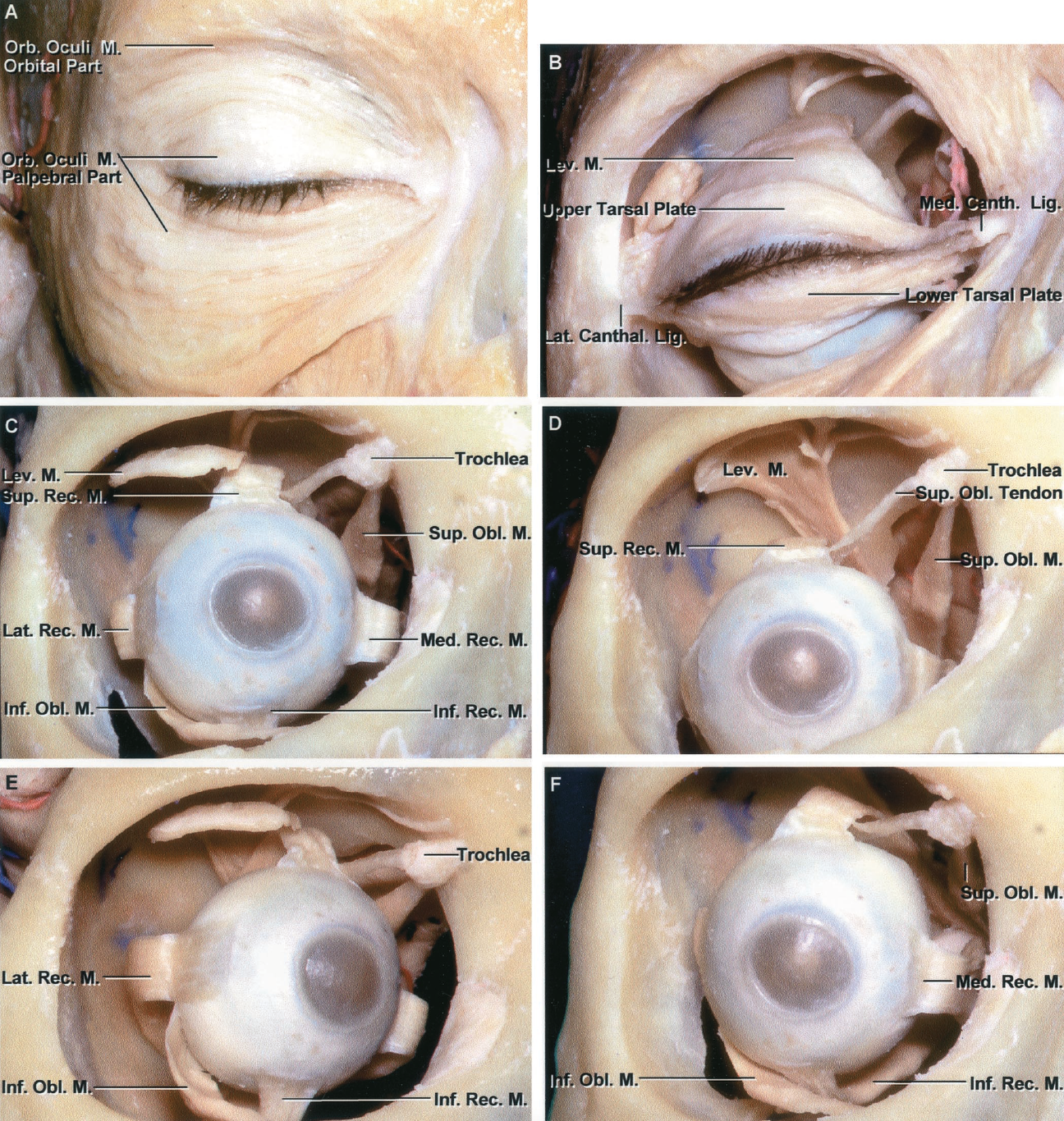 FIGURE 7.9. Anterior view of orbit and extraocular muscles. A, the skin around the right orbit has been removed to expose the orbicularis oculi muscle. This muscle surrounds the circumference of the orbit and spreads out on the temple and cheek. It has orbital, palpebral, and lacrimal parts. The orbital part of the orbicularis oculi spreads in a wide band around the margin of the orbit. The palpebral part is located in the margins of the eyelids. The orbital part arises from the nasal process of the frontal bone, the frontal process of the maxilla, and the medial palpebral ligament. On the lateral side, it blends with the occipitofrontalis and the corrugator muscles. Many of the upper orbital fibers are inserted into the skin and subcutaneous tissues of the eyebrow. The palpebral part arises from the medial palpebral ligament and the bone above and below the ligament. Some of its fibers lie close to the margin of the eyelid behind the eyelashes. The lacrimal part extends behind the lacrimal sac and attaches to the lacrimal bone. The orbicularis oculi is the sphincter muscle of the eyelids. The palpebral portion closes the eyelids. The actions of the lacrimal part are important in tear transport. B, the orbicular muscle has been removed to expose the upper and lower tarsi, thin plates of dense fibrous tissue situated deep to the palpebral part of the orbicularis oculi muscle. The tarsi are placed in and give support and shape to each eyelid. Some of the fibers of the levator muscle are attached to the upper tarsus. The medial ends of the tarsi are attached by a tendinous band, the medial canthal ligament, to the upper part of the lacrimal crest and the adjoining part of the frontal process of the maxilla in front of the lacrimal crest. The lateral ends of the tarsi are attached by a band, the lateral canthal ligament, to a tubercle on the zygomatic bone immediately within the orbital margin. The orbital septum that separates the facial from the orbital structures has
