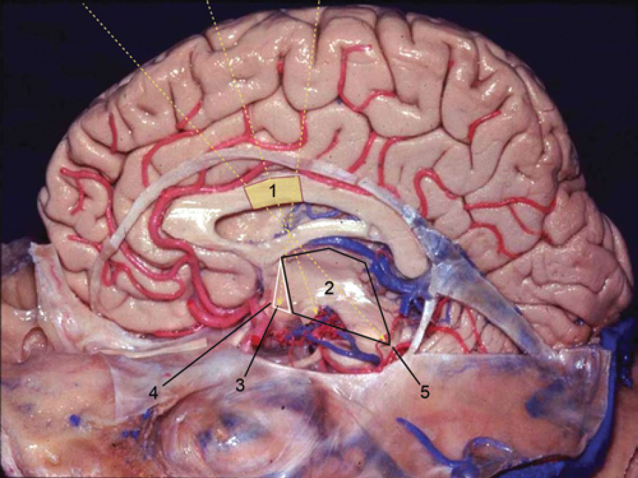 Figure 8. Sagittal section of the brain fixed with formaldehyde—graphic representation, not to scale, of the microsurgical exposure of the 2 approaches. The black line marks the area and structures of the third ventricle exposed by the transchoroidal approach; the white line shows the gain in exposure obtained by sectioning the fornix column in the transforniceal-transchoroidal approach; and the dashed yellow line represents the anterior, posterior, and intermediate viewing angles of the microscope. 1 = callosotomy; 2 = microsurgical exposure area of the transchoroidal approach; 3 = triangular area corresponding to a gain of microsurgical exposure with sectioning of the ipsilateral column of the fornix; 4 = infundibular recess of the pituitary gland; 5 = cerebral aqueduct. Source: Modified with permission from an image provided by Drs. Hung Tzu Wen and Albert L. Rhoton. (Image courtesy of AL Rhoton, Jr.)