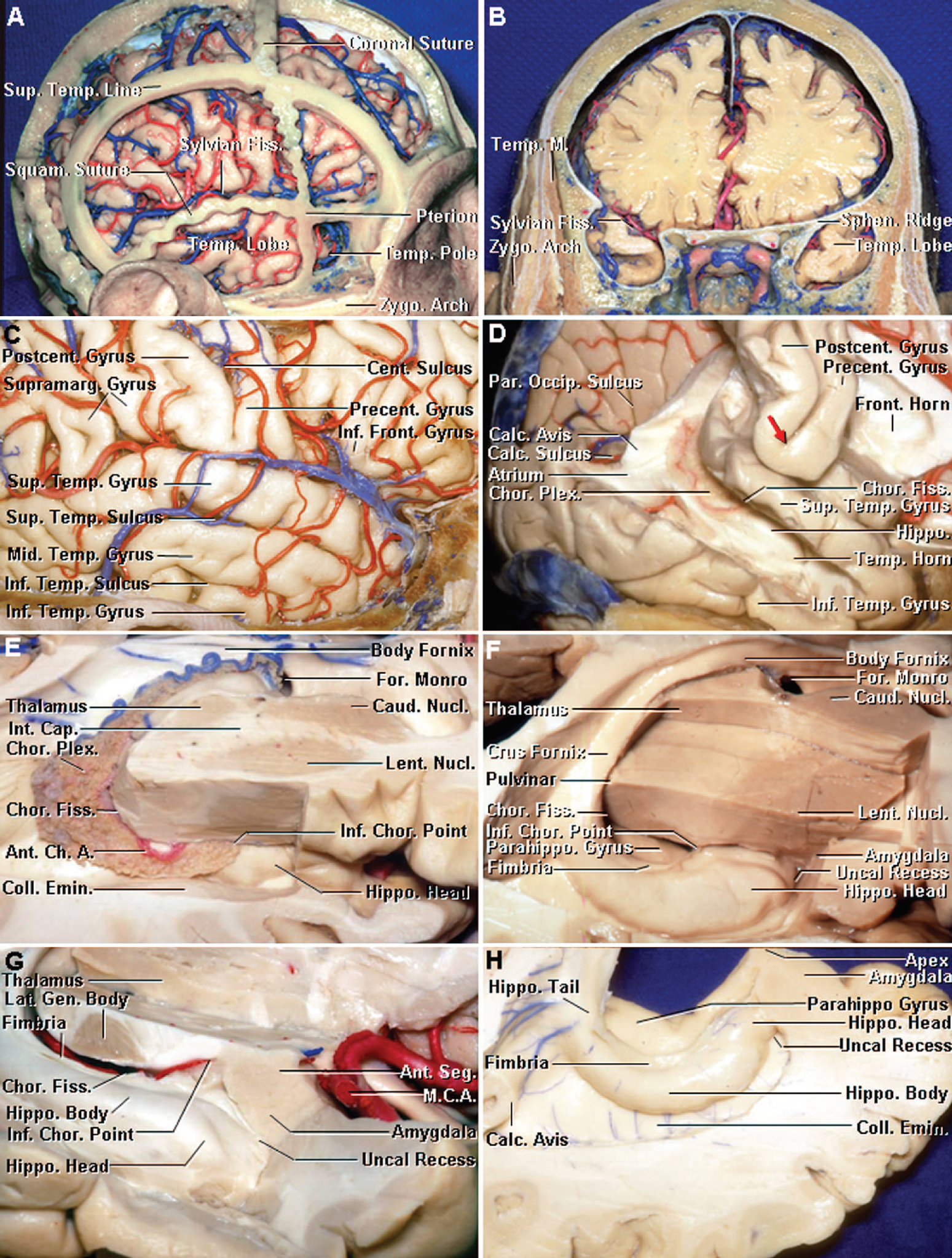 Figure 1. Dissection photographs. A, the relationships of the temporal lobe and horn, cranial sutures, and cortical surfaces of the right side. The coronal, sagittal, squamosal, and lambdoid sutures and the superior temporal line have been preserved and the dura has been opened. The pterion is located at the lateral margin of the sphenoid ridge near the junction of the coronal, squamosal, and frontosphenoid sutures and the lateral end of the greater sphenoid wing and stem of the sylvian fissure. The squamosal suture follows the anterior part of the posterior limb of the sylvian fissure before turning downward, at the level of the postcentral and supramarginal gyri, to cross the junction of the middle and posterior third of the temporal lobe. The pole of the temporal pole fits into the cupped inner surface of the greater wing of the sphenoid bone. Most of the lateral surface of the temporal lobe is positioned deep to the squamous part of the temporal bone; however, the posterior part of the lateral surface extends beyond the posterior limit of the squamous suture, deep to the parietal bone. The basal surface of the temporal lobe sits on the floor of the middle fossa and is positioned at the level of the upper edge of the zygomatic arch. B, the anterior view of a coronal section, at the level of the sylvian fissure on the right side and the sphenoid ridge in the left side. The pole of the temporal lobe extends forward under the sphenoid ridge and below the sylvian fissure. The inferolateral edge of the temporal lobe is positioned at the lateral edge of the floor of the middle fossa at the level of the zygomatic arch. C, the lateral view of the right temporal lobe. The temporal convexity is composed of the superior, middle, and inferior temporal gyri, which are divided by the superior and inferior temporal gyri. The inferior temporal gyrus folds around the lower margin of the hemisphere onto the lateral part of the basal hemispheric surface. The supramarginal gyrus wraps around the upturned posterior end of the sylvian fissure. D, that the frontal and parietal lobes, above the level of the sylvian fissure, have been removed. The upper lip of the calcarine sulcus, formed by the cuneus, has been removed to expose the lingula that forms the lower bank of the calcarine sulcus. The temporal horn and hippocampus lie deep to the middle temporal gyrus, which has been removed. The atrium lies deep to the supramarginal gyrus. The central sulcus ascends between the precentral and postcentral gyri. There is commonly a gyral bridge (red arrow) connecting the precentral and postcentral gyri below the lower end of the central sulcus, in which case the central sulcus does not open directly into the sylvian fissure. The calcar avis is the prominence in the lower part of the medial atrial wall overlying the deep end of the calcarine sulcus. E, another right cerebral hemisphere with the frontal, parietal, and lateral part of the temporal lobes removed to expose the temporal horn. The choroid plexus, which attaches along the choroidal fissure, has been preserved. The inferior choroidal point, the anterior end of the plexal attachment in the temporal horn, is positioned behind the hippocampal head. The collateral eminence, located on the lateral side of the hippocampus, overlies the deep end of the collateral sulcus. F, that the choroid plexus has been removed in another specimen to expose the choroidal fissure located between the thalamus and fornix. The amygdala forms the anterior wall of the frontal horn. The uncal recess extends medially between the hippocampal head and the amygdala. The uncal recess is positioned lateral to the apex of the uncus. The upper surface of the parahippocampal gyrus is exposed medial to the fimbria. G, the enlarged view of another specimen. The choroidal fissure extends from the foramen of Monro to the inferior choroidal point located behind the head of the hippocampus. The choroid plexus, which attaches along the choroidal fissure, has been removed. The lower edge of the choroidal fissure in the temporal horn is formed by the fimbria of the fornix and the upper edge is formed by the thalamus. Opening the fissure between the lower surface of the thalamus and the fimbria of the fornix exposes the ambient cistern. The lateral geniculate body is exposed at the lower margin of the thalamus in the upper wall of the ambient cistern. The anterior wall of the temporal horn is formed by the amygdala, which tilts backward above, but is separated from the hippocampal head by the temporal horn. The uncal recess extends medially between the head of the hippocampus and amygdala. H, the superior view of a transverse section through the right temporal horn. The hippocampus and collateral eminence form the floor of the temporal horn. The amygdala occupies the anterior segment and the head of the hippocampus occupies the posterior segment of the uncus. The apex of the uncus is directed medially at the level of the uncal recess. The fimbria arises on the surface of the hippocampus. The upper surface of the parahippocampal gyrus is exposed medial to the fimbria. The collateral eminence overlies the deep end of the collateral sulcus, which extends along the basal surface on the lateral side of the parahippocampal gyrus. The hippocampus meets the calcar avis at the junction of the atrium and temporal horn. A.Ch.A., anterior choroidal artery; Ant., anterior; Calc., calcar, calcarine; Cap., capsule; Caud., caudate; Cent., central; Chor., choroid, choroidal; Coll., collateral; Emin., eminence; Fiss., fissure; Front., frontal; For., foramen; Gen., geniculate; Hippo., hippocampal, hippocampus; Inf., inferior; Int., internal; Lat., lateral; Lent., lentiform; M., muscle; M.C.A., middle cerebral artery; Mid., middle; Nucl., nucleus; Par. Occip., parieto-occipital; Parahippo., parahippocampal; Plex., plexus; Postcent., postcentral; Precent., precentral; Seg., segment; Sphen., sphenoid; Squam., squamosal; Sup., Superior; Supramarg., supramarginal; Temp., temporal; Zygo., zygomatic. (Images courtesy of AL Rhoton, Jr.)