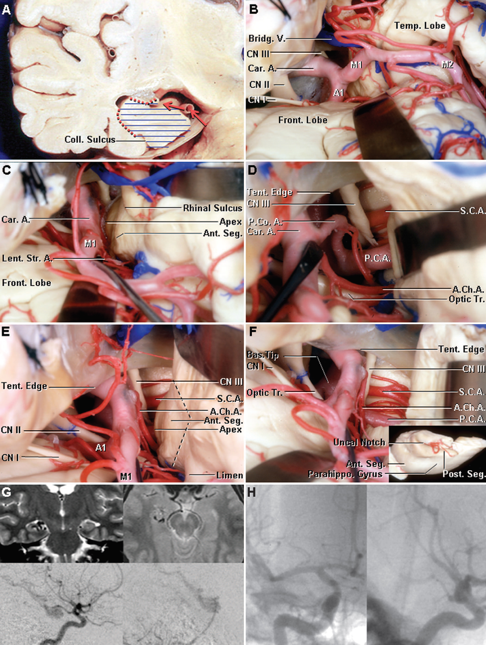 Figure 10. Images showing the transsylvian-transcisternal approach. A, coronal cut through the right temporal lobe showing the route of the approach (red arrows). After widely opening the sylvian fissure and chiasmatic, carotid, interpeduncular, and crural cisterns, the uncus of temporal lobe is removed and the temporal horn is accessed. For epilepsy, the selective disconnection will be through the choroidal fissure medially and through the collateral eminence and collateral sulcus laterally. The amygdala, uncus, hippocampus, and parahippocampal gyrus are removed (horizontal blue lines). B–F, stepwise cadaveric dissection showing the transsylvian transcisternal approach. B, right sylvian and pretemporal exposure. The bridging veins passing from the temporal pole to the sphenoparietal or cavernous sinuses are divided to allow mobilization of the medial temporal lobe. C, the sylvian fissure has been opened widely and the M1 segment of the middle cerebral artery has been elevated to expose the anterior segment of the uncus. The lenticulostriate arteries are preserved carefully. D, the arachnoid fibers between the uncus, oculomotor nerve, and the vessels in the carotid and crural cisterns have been divided to expose the anterior choroidal, posterior communicating, superior cerebellar, and posterior cerebral arteries. The optic tract is exposed above the anterior choroidal artery. E, the segment of the uncus medial to a line between the cisternal portion of the anterior choroidal artery and rhinal sulcus is exposed along the line of the planned resection (interrupted line). F, the uncus, amygdala, and head and anterior part of the body of the hippocampus have been removed. The temporal horn is accessed from anterior and medially. The insert shows the medial surface of the resected medial temporal lobe, including the anterior and posterior segment of the uncus and the uncal notch. G, preoperative magnetic resonance imaging scans (upper left, coronal; upper right, axial) and lateral views of a (lower left) carotid and (lower right) vertebral angiograms of a 29-year-old man, disclosing an arteriovenous malformation in the anterior portion of the right medial temporal lobe. H, postoperative (left) anteroposterior and (right) lateral carotid angiogram after a transsylvian transcisternal approach revealing no residual lesion. A1, segment of the anterior cerebral artery; A., artery; A.Ch.A., anterior choroidal artery; Ant., anterior; Bas., basilar; Bridg., bridging; Car., carotid; CN, cranial nerve; Coll., collateral; Front., frontal; Lent. Str., lenticulostriate; M1, M2, segments of the middle cerebral artery; Parahippo., parahippocampal; P.C.A., posterior cerebral artery; P.Co.A., posterior communicating artery; Post., posterior; S.C.A., superior cerebellar artery; Seg., segment; Temp., temporal; Tent., tentorial; Tr., tract; V., vein. (Images courtesy of AL Rhoton, Jr.)