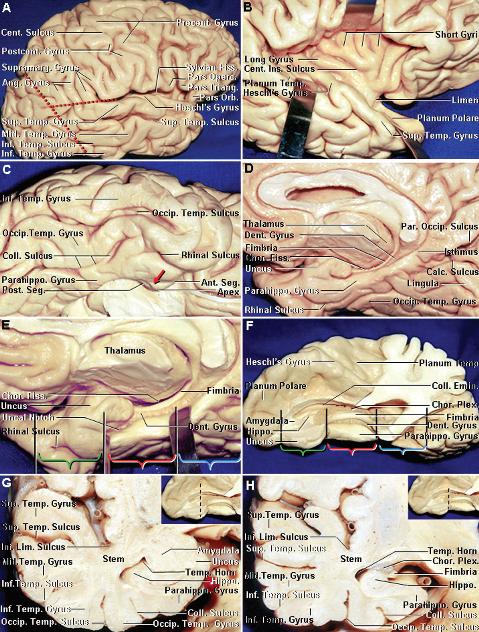Figure 2. Dissection photographs showing cortical relationships. A, lateral view of the right cerebral hemisphere. The lateral temporal surface is divided by the superior and inferior temporal sulci into the superior, middle, and inferior temporal gyri. Both the temporal gyri and sulci are parallel to the sylvian fissure. The sylvian fissure and central sulcus are the most important landmarks on the lateral surface of the brain. The sylvian fissure extends backward and turns up into the supramarginal gyrus at its posterior end. The inferior frontal gyrus is composed of the pars orbitalis, pars triangularis, and pars opercularis. The angular gyrus wraps around the upturned posterior end of the superior temporal sulcus. The temporal lobe is separated from the parietal lobe by the sylvian fissure and the extended sylvian line, which extends backward along the long axis of the sylvian fissure; from the occipital lobe on the lateral convexity, by the inferior part of the lateral parietotemporal line, which runs from the impression of the parieto-occipital sulcus on the superior margin of the hemisphere to the preoccipital notch; from the occipital lobe on the lower surface by the basal parietotemporal line, which extends from the junction of the calcarine and parieto-occipital sulcus to the preoccipital notch; and from insula, by the inferior portion of the limiting sulcus of the insula. B, opercular lips of the sylvian fissure have been retracted to expose the insula and superior surface of the temporal lobe. The insula has a triangular shape with its apex directed anterior and inferior toward the limen insulae. The insula is encircled and separated from the frontal, parietal, and temporal opercula by a shallow limiting sulcus. The lower part of the limiting sulcus that borders the temporal lobe is referred to as the inferior limiting sulcus. The central sulcus of the insula separates the short gyri anteriorly from the long gyri posteriorly. The superior surface of the temporal lobe has two parts: the posteriorly placed planum polare, formed by the transverse temporal gyri, the most anterior of which is Heschl's gyrus, and the planum temporale, which forms the floor of the anterior part of the sylvian fissure. The temporal lobe is connected superiorly to the insula by the temporal stem and anteriorly to the basal frontal lobe by the limen insulae. C, basal view of the right temporal lobe. The basal temporal surface is traversed longitudinally by the occipitotemporal, collateral, and rhinal sulci that divide it from lateral to medial into the lower surface of the inferior temporal gyrus and the occipitotemporal (fusiform) and parahippocampal gyri. The anterior end of the parahippocampal gyrus deviates medially to form the uncus. The rhinal sulcus is located lateral to the uncus. The collateral sulcus may or may not be continuous anteriorly with the rhinal sulcus. The uncus has an anterior segment, an apex, and a posterior segment. The medial part of the uncus usually projects medial to and is often grooved (red arrow) by the tentorial edge. D, medial surface of the right cerebral hemisphere. The medial surface of the temporal lobe is the most complex of the medial cortical areas. It is composed of three longitudinal strips of neural tissue, one located above the other. The most inferior strip is formed by the parahippocampal gyrus, the middle strip by the dentate gyrus, and the superior strip by the fimbria of the fornix. The choroid fissure in the temporal horn is located between the fimbria and the lower surface of the thalamus. The parahippocampal gyrus forms most of the medial surface of the temporal lobe. Anteriorly, the parahippocampal gyrus deviates medially to form the uncus. Posteriorly, it is intersected by the calcarine sulcus, which divides the posterior portion of the parahippocampal gyrus into an upper part that is continuous with the isthmus of the cingulate gyrus and a lower part that is continuous with the lingula. E, enlarged view of D. The parahippocampal gyrus has been retracted to expose the dentate gyrus. The parahippocampal and dentate gyri are separated by the hippocampal sulcus, and the dentate gyrus and fimbria are separated by the fimbriodentate sulcus. In the temporal horn, the choroid fissure is located between thalamus and fimbria of fornix. The medial temporal region is divided into three parts: anterior, middle, and posterior. The anterior part (green brackets) extends posteriorly from the anterior end of the rhinal sulcus and uncus to a transverse line at the level of the inferior choroidal point. The middle part (red brackets) extends posteriorly from the inferior choroidal point to a transverse line passing at the level of the quadrigeminal plate. The posterior part (blue brackets) extends from the quadrigeminal plate to the level of the basal parietotemporal line, which connects the preoccipital notch to the lower end of the parieto-occipital sulcus. F, superior view of the right temporal lobe with the anterior, middle, and posterior part bracketed as in E. The upper surface of the temporal lobe forms the floor of the sylvian fissure and presents two distinct parts: the planum polare anteriorly and the planum temporale posteriorly. The planum polare is free of gyri, and its lateral edge is formed by the superior temporal gyrus. The planum temporale is formed by the transverse temporal gyri. The inferior choroidal point, the lower end of the choroidal fissure, is located just behind the uncus and head of the hippocampus. The amygdala, located predominantly within the boundaries of the uncus, forms most of the anterior segment of the uncus and the anterior wall of the temporal horn. Superiorly, the amygdala blends into the globus pallidus without any clear demarcation. The hippocampus sits in the floor of the temporal horn. The head of the hippocampus is directed anteriorly and medially and is buried in the upper half of the posterior segment of the uncus. G, coronal section of a right temporal lobe at the level of the apex of the uncus (insert). The temporal stem, the layer of white and gray matter that connects the temporal lobe to the lower insula, is positioned above the temporal horn. H, coronal section of a right temporal lobe at the level of the inferior choroidal point (insert), which is positioned at the junction of the anterior and middle portions of the medial temporal lobe. The inferior choroidal point is located at the posterior edge of the uncus and at the anterior end of the choroid plexus and choroidal fissure in the temporal horn. Ang., angular; Ant., anterior; Calc., calcarine; Cent., central; Chor., choroidal or choroid; Coll., collateral; Dent., dentate; Emin., eminence; Fiss., fissure; Hippo., hippocampus; Inf., inferior; Ins., insular; Lim., limiting; Mid., middle; Occip., occipital; Operc., opercularis; Orb., orbitalis; Par. Occip., parieto-occipital; Parahippo., parahippocampal; Plex., plexus; Post., posterior; Postcent., postcentral; Precent., precentral; Seg., segment; Sup., superior; Supramarg., supramarginal; Temp., temporal, temporale; Triang., triangularis. (Images courtesy of AL Rhoton, Jr.)