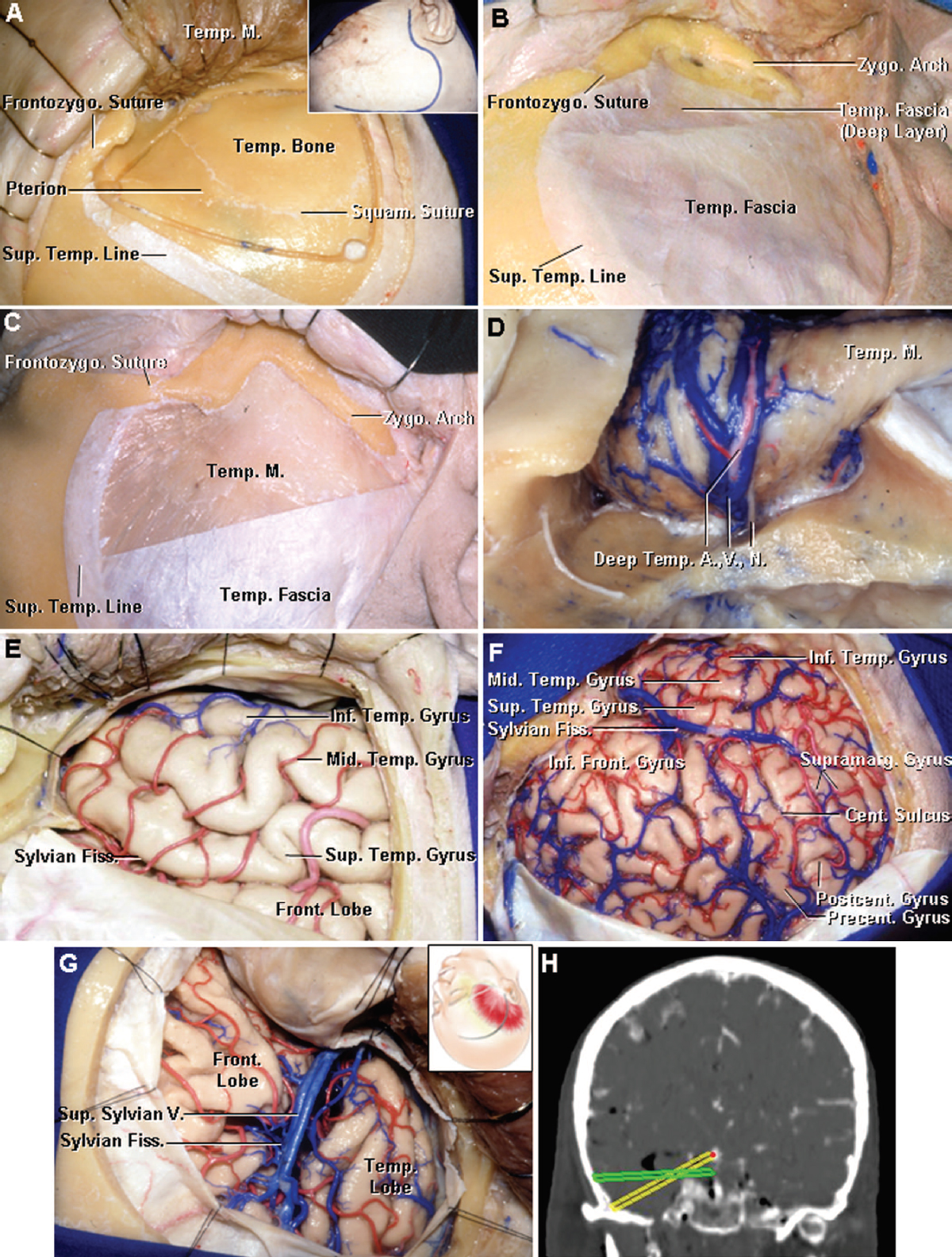 Figure 6. Images showing the craniotomy procedure for exposure of temporal lobe. A, insert shows the skin incision, which extends more posteriorly above the ear than with the usual pterional craniotomy. The scalp and temporalis muscle have been elevated to show the bone flap for a temporal lobectomy. The bone flap, centered below the squamosal suture, will be smaller if only a transsylvian or transbasal or direct temporal lobectomy is needed and will be larger if cortical mapping and electrocardiography are to be carried out. A cuff of fascia remains attached along the superior temporal line to aid in a closure. B, interfascial dissection of the temporalis fascia has been completed. In this exposure, the superficial layer of temporalis fascia has been incised and folded down with the galea to preserve the branches of the facial nerve to the frontalis muscle, which course on the outer surface of the temporalis fascia. C, subfascial approaches in which both the superficial and deep layers of temporalis fascia are elevated to preserve the branches of the facial nerve. The authors prefer the interfascial shown in B. It is best to avoid cutting into the muscle, which may result in scarring, atrophy, cosmetic deformity, and disorders of mastication. D, temporalis muscle has been folded downward. The careful handling of this muscle is important in obtaining a good cosmetic result. The arterial supply, venous drainage, and nerve supply all course on the deep surface of the muscle directly on the periosteal surface of the bone. Using a hot cutting current to elevate the muscle will often damage the muscle's nerve and vascular supply with resulting temporalis atrophy and a poor cosmetic result. It is best to elevate the muscle using careful subperiosteal dissection with a sharp periosteal elevator. E, exposure of the right temporal lobe used in cases in which the preoperative studies have clearly defined a lesion in the medial temporal lobe and there is no need to expose the area above the sylvian fissure. F, more extensive exposure above the sylvian fissure is used if cortical mapping and electrocardiography are needed to define the extent of resection and the seizure focus. G, pterional exposure used for the transsylvian-transinsular and transsylvian-transcisternal approaches. The insert shows the site of the scalp incision. H, magnetic resonance imaging scan with image guidance showing the operative trajectory both before and after dividing the zygomatic arch. The green image shows the trajectory obtained if the zygomatic arch remains and the muscle is folded downward over the upper edge of the arch. The yellow image shows the lower trajectory obtained after dividing the zygomatic arch and folding the muscle down between the divided edge of the arch. A., artery; Cent., central; Fiss., fissure; Front., frontal; Frontozygo., frontozygomatic; Inf., inferior; M., muscle; Mid., middle; N., nerve; Postcent., postcentral; Precent., precentral; Squam., squamosal; Sup., superior; Supramarg., supramarginal; Temp., temporal; V., vein; Zygo., zygomatic. (Images courtesy of AL Rhoton, Jr.)