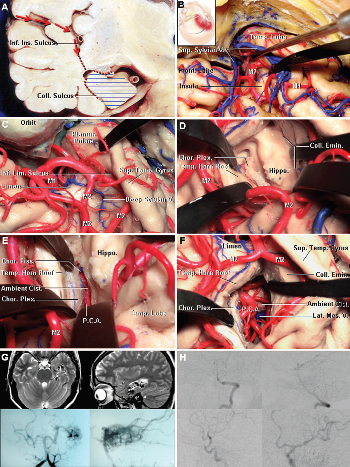 Figure 7. Images showing the transsylvian-transinsular approach. A, coronal section through the right temporal lobe near the inferior choroidal point. In this approach, the temporal horn is reached through the anterior portion of the inferior limiting sulcus of the insula, after widely opening the sylvian fissure. During an amygdalohippocampectomy for epilepsy, the amygdala, uncus, hippocampus, and parahippocampal gyrus are removed (horizontal blue lines). The medial disconnection of the medial temporal structures is achieved by opening the choroidal fissure. The lateral disconnection is directed through the collateral eminence and sulcus. B–F, stepwise cadaveric dissection demonstrating the transsylvian transinsular approach. B, right pterional craniotomy with exposure of the frontal and temporal lobes in an anatomic specimen. The sylvian fissure has been opened to expose the anterior portion of the insula and the bifurcation and M2 branches of the middle cerebral artery. C, anterior portion of the inferior limiting sulcus of the insula has been exposed. The M2 branches that course along the inferior limiting sulcus must be mobilized gently. D, M2 segment has been elevated and the inferior limiting sulcus has been opened to expose the temporal horn, hippocampus, choroid plexus, collateral eminence, and roof of the temporal horn. E, medial disconnection of the temporal lobe is accomplished by opening the choroidea fissure through the tenia fimbriae proceeding backward from the inferior choroidal point. The choroid plexus remains attached to the tenia in the roof of the temporal horn. F, amygdalohippocampectomy has been competed, exposing the vascular elements in the ambient cistern. G and H, pre- and postoperative studies of an arteriovenous malformation involving the anterior and middle portions of the left medial temporal region. A transsylvian-transinsular approach was combined with a transsylvian-transcisternal approach to achieve a complete removal. G, preoperative magnetic resonance imaging scans (upper left, axial; upper right, sagittal) and vertebral angiograms (lower left, anteroposterior view; lower right, lateral view). H, postoperative carotid (upper left, anteroposterior view; upper right, lateral view) and vertebral angiograms (lower left, lateral view; lower right, anteroposterior view) showing complete removal. Chor., choroid, choroidal; Cist., cistern; Coll., collateral; Emin., eminence; Fiss., fissure; Front., frontal; Hippo., hippocampus; Inf., inferior; Ins., insular; Lat., lateral; Lim., limiting; M1, M2, M4, segments of the middle cerebral artery; Mes., mesencephalic; P.C.A., posterior cerebral artery; Plex., plexus; Sup., superior; Temp., temporal; V., vein. (Images courtesy of AL Rhoton, Jr.)