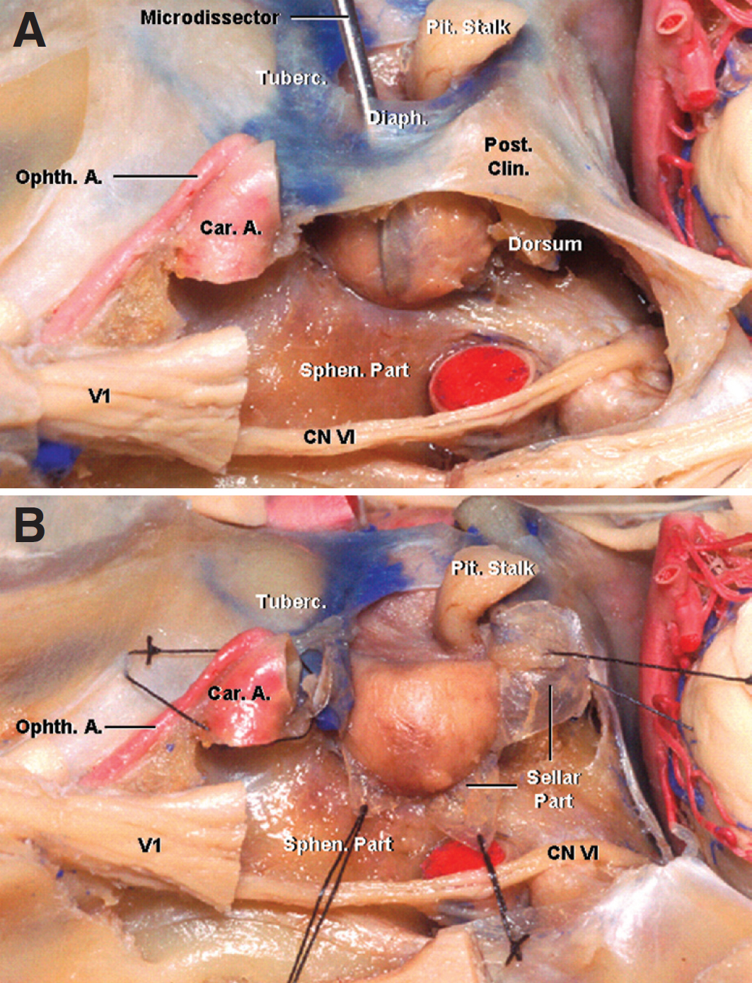 Figure 5. The medial wall of the cavernous sinus is shown. A, the contents of the left cavernous sinus have been resected to expose its medial wall from a lateral perspective. A dissector is located between the pituitary gland and the medial wall. The medial wall of the cavernous sinus is composed of two sectors: sellar and sphenoidal. The sellar portion is also the lateral wall of the pituitary gland, and just one layer of dura forms it. B, the sellar portion of the medial wall has been opened to expose the pituitary gland. A., artery; Car., carotid; Clin., clinoid; CN, cranial nerve; Diaph., diaphragm; Ophth., ophthalmic; Pit., pituitary; Post., posterior; Sphen., sphenoidal; Tuberc., tuberculum. (Images courtesy of AL Rhoton, Jr.)