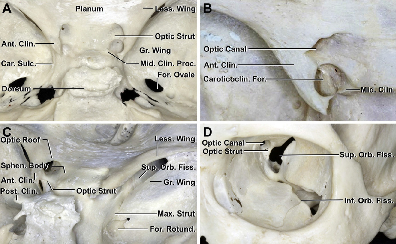 Figure 1. Osseous relationships of the anterior clinoid process, superior orbital fissure, and optic canal. (A) Superior view. The anterior clinoid process projects backward from the medial end of the lesser wing of the sphenoid bone. The anterior attachment of the anterior clinoid process extends medially from the base of the clinoid to the planum and forms the roof of the optic canal. The posterior attachment of the anterior clinoid process, the optic strut, extends from the inferomedial aspect of the anterior clinoid to the body of the sphenoid bone and forms the inferior wall of the optic canal. Another small prominence, the middle clinoid process, situated on the medial side of the carotid sulcus at the level of the tips of the anterior clinoid process, projects upward and laterally. (B) Superior view of a left caroticoclinoid foramen. An osseous bridge extending from the tip of the anterior clinoid to the tip of the middle clinoid process creates a nearly complete bony ring around the artery, called the caroticoclinoid foramen. (C) Oblique posterior view of the left optic canal and optic strut and right superior orbital fissure. The optic canal has an oval shape and is formed superiorly by the anterior attachment of the anterior clinoid, inferiorly by the optic strut, laterally by the medial side of the anterior clinoid process and the optic strut, and medially by the sphenoid body. The superior orbital fissure has a triangular shape and is formed superiorly by the lesser wing of the sphenoid bone, medially by the optic strut and the sphenoid body, and inferiorly and laterally by the greater sphenoid wing. The maxillary strut is the bridge of bone separating the superior orbital fissure from the foramen rotundum. (D) Intraorbital view of the optic canal and superior orbital fissure. The optic strut separates the optic canal and superior orbital fissure and forms the floor of the optic canal and the superomedial part of the roof of the superior orbital fissure. Ant., anterior; Car., carotid; Caroticoclin., caroticoclinoid; Clin., clinoid; Fiss., fissure; For., foramen; Gr., greater; Inf., inferior; Less., lesser; Max., maxillary; Mid., middle; Orb., orbital; Post., posterior; Proc., process; Rotund., rotundum; Sphen., sphenoid; Sulc., sulcus; Sup., superior. (Images courtesy of AL Rhoton, Jr.)