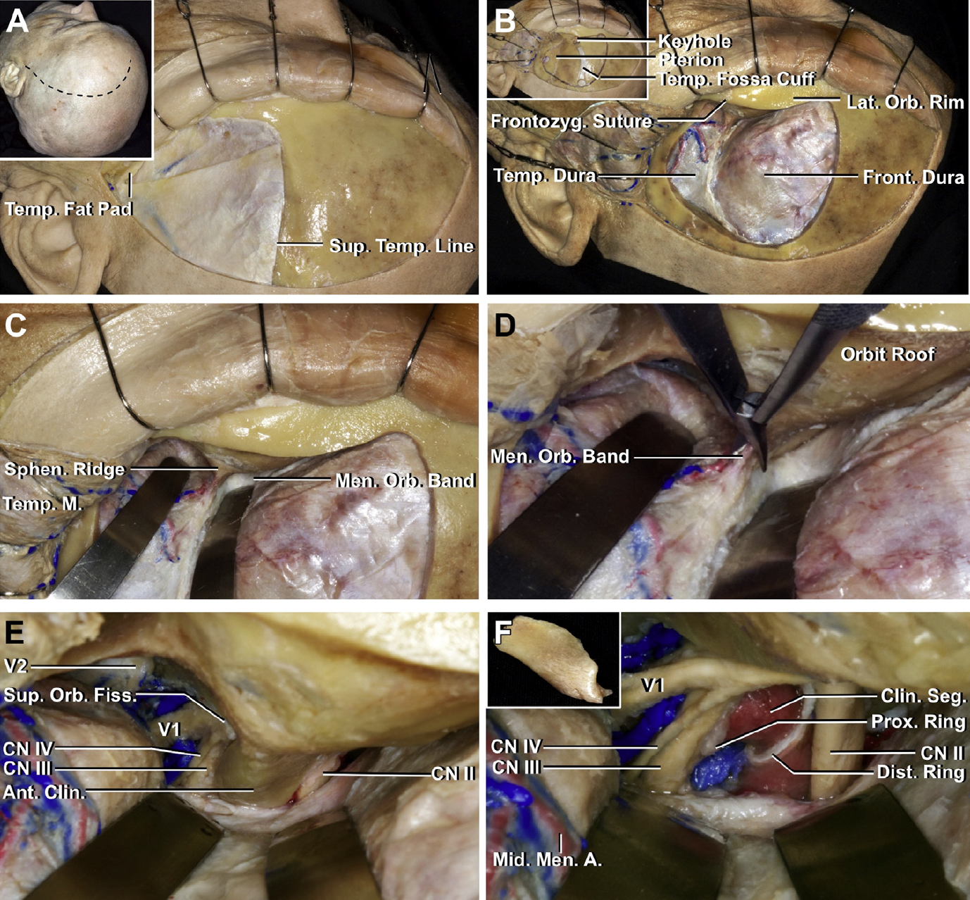 Figure 3. Surgical view of a stepwise left anterior clinoid removal and optic nerve decompression through the pterional approach. (A) The inset (upper left) show the position of the head and the site of the scalp incision. The scalp has been reflected using subgaleal dissection to expose the frontal bone and the upper part of the temporalis muscle and fascia. The facial nerve courses on the outer surface of the superficial temporal fascia above the zygomatic arch. The superficial layer of temporalis fascia has been divided just above the interfascial fat pad so that the superficial layer of temporalis fascia and the fat pad can be folded downward in continuity with the frontal pericranium to protect the branches of the facial nerve.29 (B) The inset (upper left) shows the burr holes and the craniotomy cuts for the bone flap. A cuff of temporalis fascia is preserved along the superior temporal line to aid in anchoring the temporal muscle to the line at the time of closure. The keyhole burr hole is located above and behind the frontozygomatic suture. The bone flap has been elevated to expose the temporal and frontal dura. (C) The sphenoid ridge has been flattened, and a thin shell of bone has been left along the roof and lateral wall of the orbit. The frontal and temporal dura has been retracted to expose the meningoperiorbital band at the lateral edge of the superior orbital fissure. (D) The meningo-orbital band is cut using curved microscissors. (E) The dura has been elevated from the anterior clinoid process and along the anterior wall of the cavernous sinus to expose the entrance of the oculomotor, trochlear, and ophthalmic nerves in the superior orbital fissure, and V2 in the foramen rotundum. (F) The anterior clinoid process has been removed using no-drill technique (insert) to expose the clinoid segment of the internal carotid artery between the proximal and distal dural rings. The deeper part of the optic strut has also been removed using the no-drill technique. 270° of the intercanalicular segment of the optic nerve has been decompressed. A., artery; Ant., anterior; Clin., clinoid; CN, cranial nerve., Dist., distal; Fiss., fissure; Front., frontal; Frontozyg., frontozygomatic; Lat., lateral; M., muscle; Men., meningeal, meningo; Mid., middle; Orb., Orbital; Prox., proximal; Seg., segment; Sphen., sphenoid; Sup., superior; Temp., temporal, temporalis. (Images courtesy of AL Rhoton, Jr.)