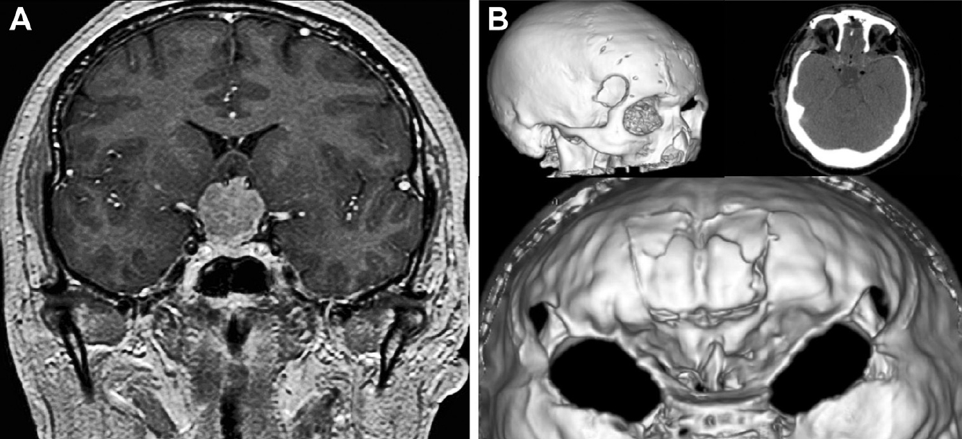 Figure 5. Illustrative case 1. Meningioma of the tuberculum sellae. A 55-year-old man, with a 1-year history of headache and progressive decrease in visual acuity. Preoperative imaging showed a tuberculum sellae meningioma. Visual fields showed right bitemporal hemianopia and left central scotoma. The procedure was performed in 2 stages. In the first, a bilateral MiniEx approach was performed to decompress the optic nerves. In the second, a subfrontal approach aimed at tumor removal. The patient had an uneventful postoperative course without complications and was discharged with improved vision. Preoperative (A) and postoperative (B) studies of a case of bilateral optic nerve decompression through a keyhole approach in a patient with a meningioma of tuberculum sellae. A coronal view of T1-weighted contrast magnetic resonance imaging study showing a tumor located at the level of the tuberculum sellae and planum that compressed both optic nerves. (B) Computed tomography with three-dimensional reconstruction, showing the bilateral keyhole, extradural anterior clinoidectomies with 270° optic nerve decompression. After bilateral optic nerve decompression, the tumor was removed through the subfrontal approach. (Images courtesy of AL Rhoton, Jr.)