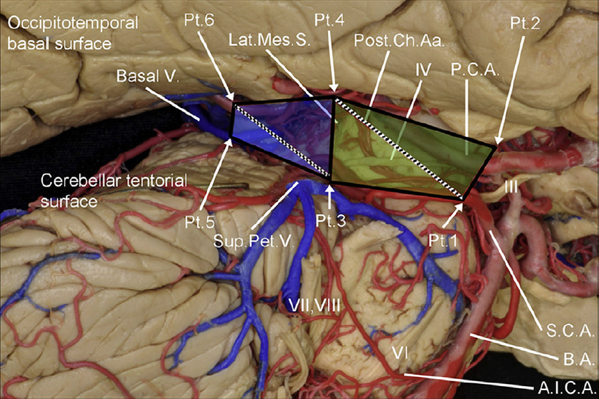 Figure 2. Lateral perspective of the ambiens cistern region. The figure illustrates the landmark points used to evaluate the area of exposure at the anterior and medial components. PCA, posterior cerebral artery; Post Ch Aa, posterior choroidal arteries; Lat Mes S, lateral mesencephalic sulcus; Basal V, basal vein; Sup Pt V, superior petrosal vein; VII, facial nerve; VI, abducens nerve; SCA, superior cerebellar artery; BA, basilar artery; AICA, anterior inferior cerebellar artery. (Image courtesy of AL Rhoton, Jr.)