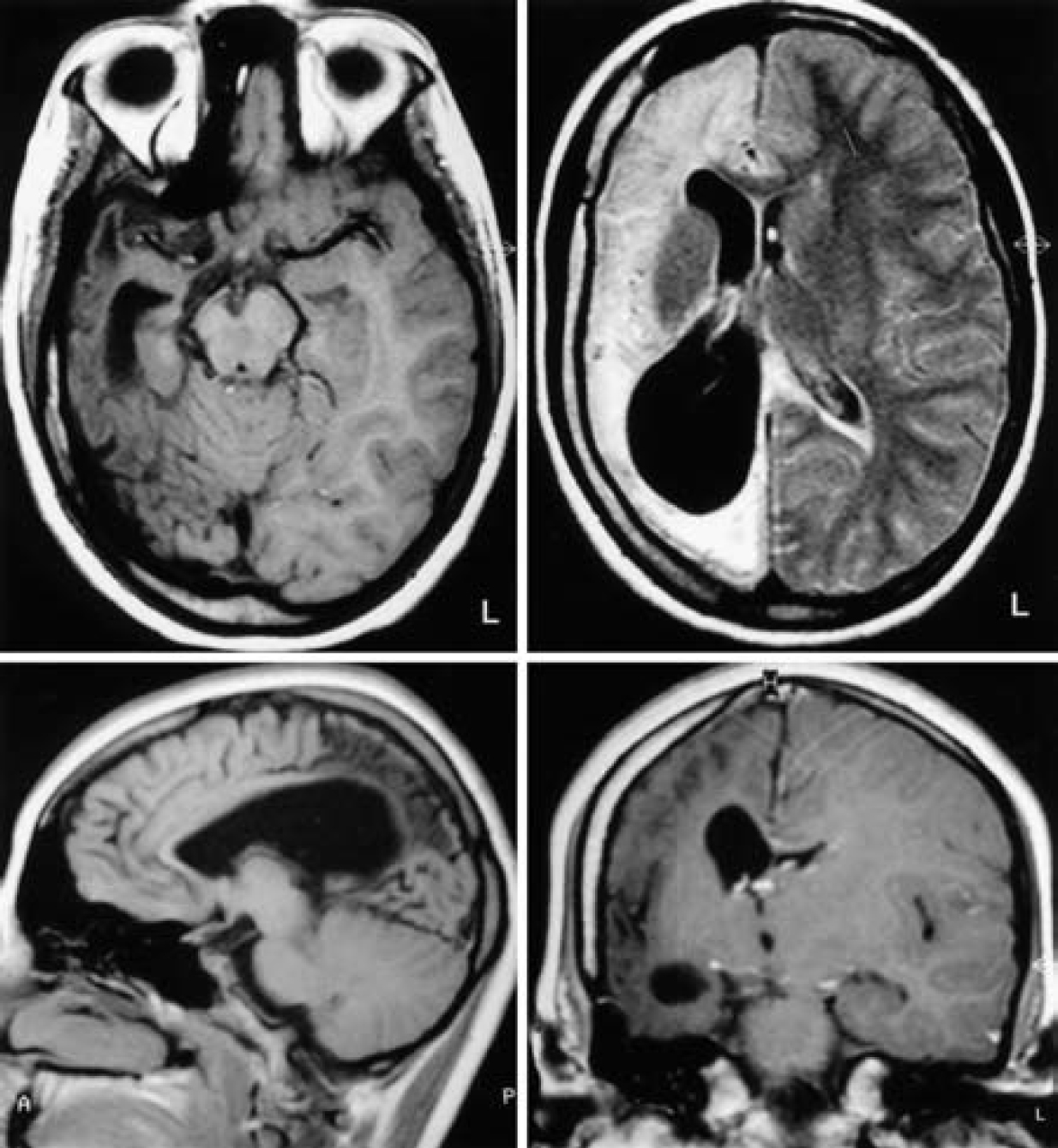 Figure 11.  Preoperative MR images obtained in a 16-year-old girl, demonstrating atrophy of the right hemisphere and an enlarged right lateral ventricle. (Images courtesy of AL Rhoton, Jr.)