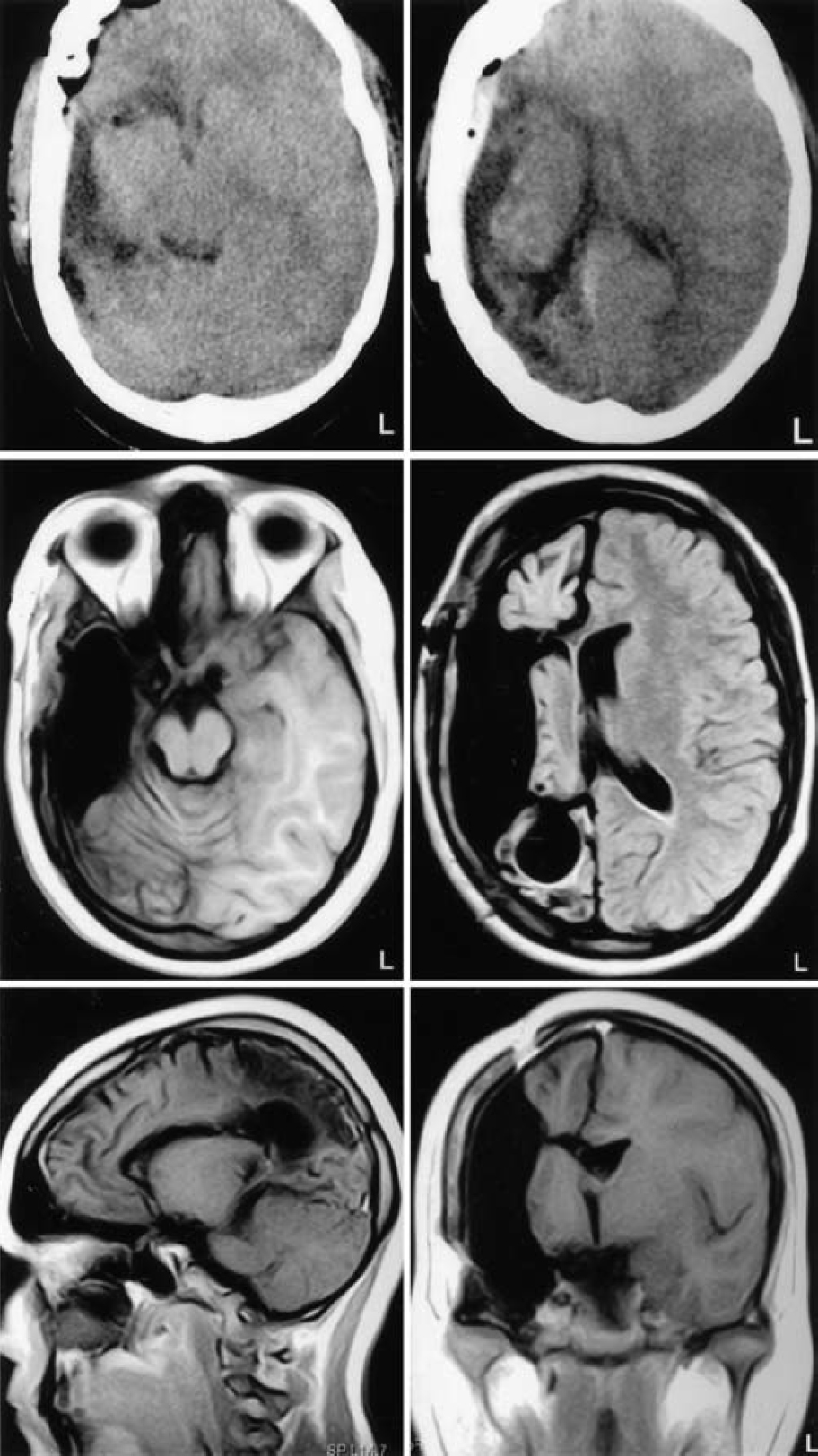 Figure 21.   Upper:  Computerized tomography scans obtained 4 hours after surgery.  Center and Lower:  Postoperative MR images obtained 5 months after surgery. (Images courtesy of AL Rhoton, Jr.)