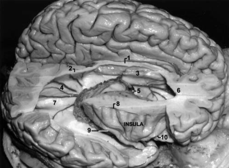 Figure 3.  Photograph (lateral view) demonstrating the right insula. The overlying gyri of the lateral surface of the hemisphere have been removed to expose the lateral ventricle. 1 = body of the corpus callosum; 2 = splenium of the corpus callosum; 3 = septum pellucidum; 4 = bulb of the callosum and the medial atrial veins; 5 = foramen of Monro; 6 = genu of the corpus callosum; 7 = calcar avis; 8 = superior limiting sulcus of the insula; 9 = inferior limiting sulcus of the insula; 10 = anterior limiting sulcus of the insula. (Image courtesy of AL Rhoton, Jr.)