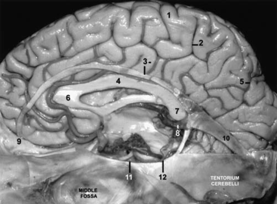 Figure 5.  Photograph (midsagittal view) demonstrating the free edges of the tentorium and the falx, which have been preserved to display their relationship to the brainstem and the corpus callosum. 1 = precentral gyrus; 2 = marginal ramus of the cingulate sulcus; 3 = cingulate gyrus and free edge of the falx; 4 = body of the corpus callosum; 5 = parietooccipital sulcus; 6 = genu of the corpus callosum; 7 = splenium of the corpus callosum; 8 = vein of Galen; 9 = crista galli; 10 = straight sinus; 11 = horizontal portion of the free edge of the tentorium; 12 = beginning of the ascending portion of the free edge of the tentorium. (Image courtesy of AL Rhoton, Jr.)