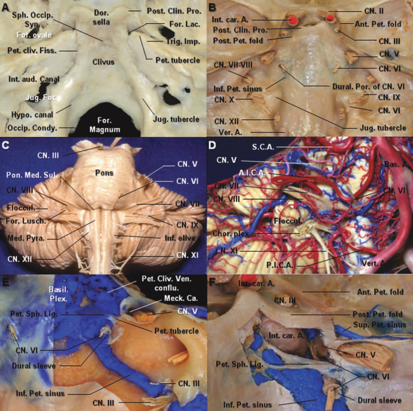 Figure 1. A: The petrosal apex of the temporal bone is received into the angular interval between the clival part of the occipital bone and the greater wing of the sphenoid bone. The apex of the petrous bone presents the internal orifice of the internal carotid artery and forms the posterolateral border of the foramen lacerum. The petrous tubercle, the insertion of the petrosphenoid ligament, is medial to the trigeminal impression. B: The brain has been removed to expose the foramina for the cranial nerves. The abducens nerve enters the dural porus of the abducens and Dorello's canal located medial and inferior to the porus of the trigeminal nerve. The Inferior Petrosal Sinus courses medial to the abducens nerve. C: Anterior view of the brainstem. The abducens nerve leaves the brainstem at the junction of the pons and the medulla, medial to the facial nerve. It course upward, anteriorly and laterally between the pons and clivus within pontine arachnoid. D: The anterior inferior cerebellar artery passes dorsal to the abducens nerve. The vein of the pontomesencephalic sulcus courses below the abducens nerve. E: The meningeal dural layer of the posterior aspect of the petrous apex has been removed to expose the dural sleeve of the abducens nerve, petroclival venous confluence, basilar plexus, and inferior petrosal sinus. The inferior petrosal sinus connects the petroclival venous confluence with the jugular bulb and courses medial to the abducens nerve. The abducens nerve passes under the petrosphenoid ligament. F: The petroclival venous confluence has been removed. The abducens nerve enters the cavernous sinus between the internal carotid artery and the trigeminal nerve. The cisternal space follows the nerve inside the dural sleeve. The petrosphenoid ligament is attached laterally to the petrous tubercle medial to the trigeminal nerve. A., artery; Ant., anterior; Aud., auditory; Bas., basilar; Ca., cave; Chor., choroid; Clin., clinoid; CN., cranial nerve; conflu., con