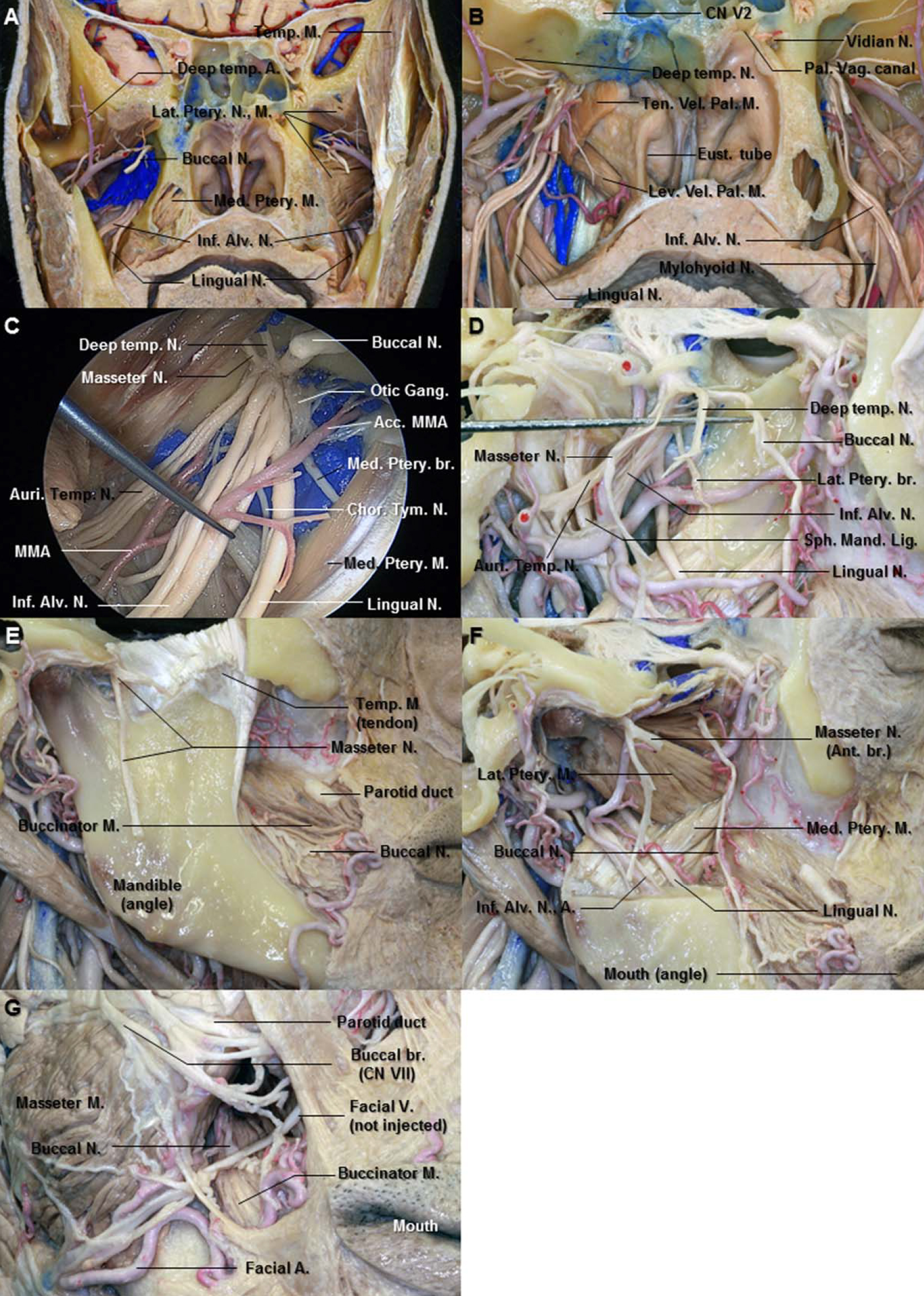 Figure 11. A. Coronal section just behind the pterygopalatine fossa. The right lateral pterygoid muscle has been removed from the pterygoid venous plexus and posterior division of the mandibular nerve. The nerve to the lateral pterygoid muscle originates from the buccal nerve passing between the two heads of the lateral pterygoid. B. The right pterygoid venous plexus and pterygoid plates have been removed to expose the branches of the mandibular nerve. The posterior division of the mandibular nerve descends between the lateral pterygoid muscle (removed) and tensor veli palatini muscle (cut). The palatovaginal canal is located media to the vidian canal. C. Enlarged view of the proximal portion of the right mandibular nerve. The nerve to the medial pterygoid muscle arises from the medial aspect of the mandibular nerve close to the otic ganglion. D. Lateral view of the right infratemporal fossa. The mandibular ramus and lateral pterygoid muscle have been removed. The buccal, deep temporal, and masseter nerves have been elevated with the dissector. This division passes in the horizontal plane. The auriculotemporal nerve passes backward between the sphenomandibular ligament and the ramus of the mandible (removed). E. The masseter muscle has been removed from the mandible to expose the masseter nerve. The masseter nerve passes laterally above the lateral pterygoid muscle in front of the temporomandibular joint and behind the tendon of the temporal muscle. It runs to the deep surface of the master muscle. F. The mandibular ramus has been removed to expose the lingual and the inferior alveolar nerves. G. Anterior view of the right cheek. The buccal nerve emerges from the undersurface of the ramus of mandible and unites with the buccal branches of the facial nerve. Abbreviations: Acc. MMA., Accessory middle meningeal artery; Ant., anterior; Alv., alveolar; Auri. Temp. N., auriculotemporal nerve; Br., branch; Chor.-Tym. N., chorda tympani nerve; CN., cranial nerve; Eust., Eustachian; Gang., ganglion; Inf., inferior; Lat., lateral; Lev. Vel. Pal. M., levator veli palatini muscle; M., muscle; Med., medial; N., nerve; Pal. Vag., palatovaginal; Sph. Mand. Lig., sphenomandibular ligament; Temp., temporal; Ten. Vel. Pal. M., tensor veli palatini muscle. (Images courtesy of AL Rhoton, Jr.)