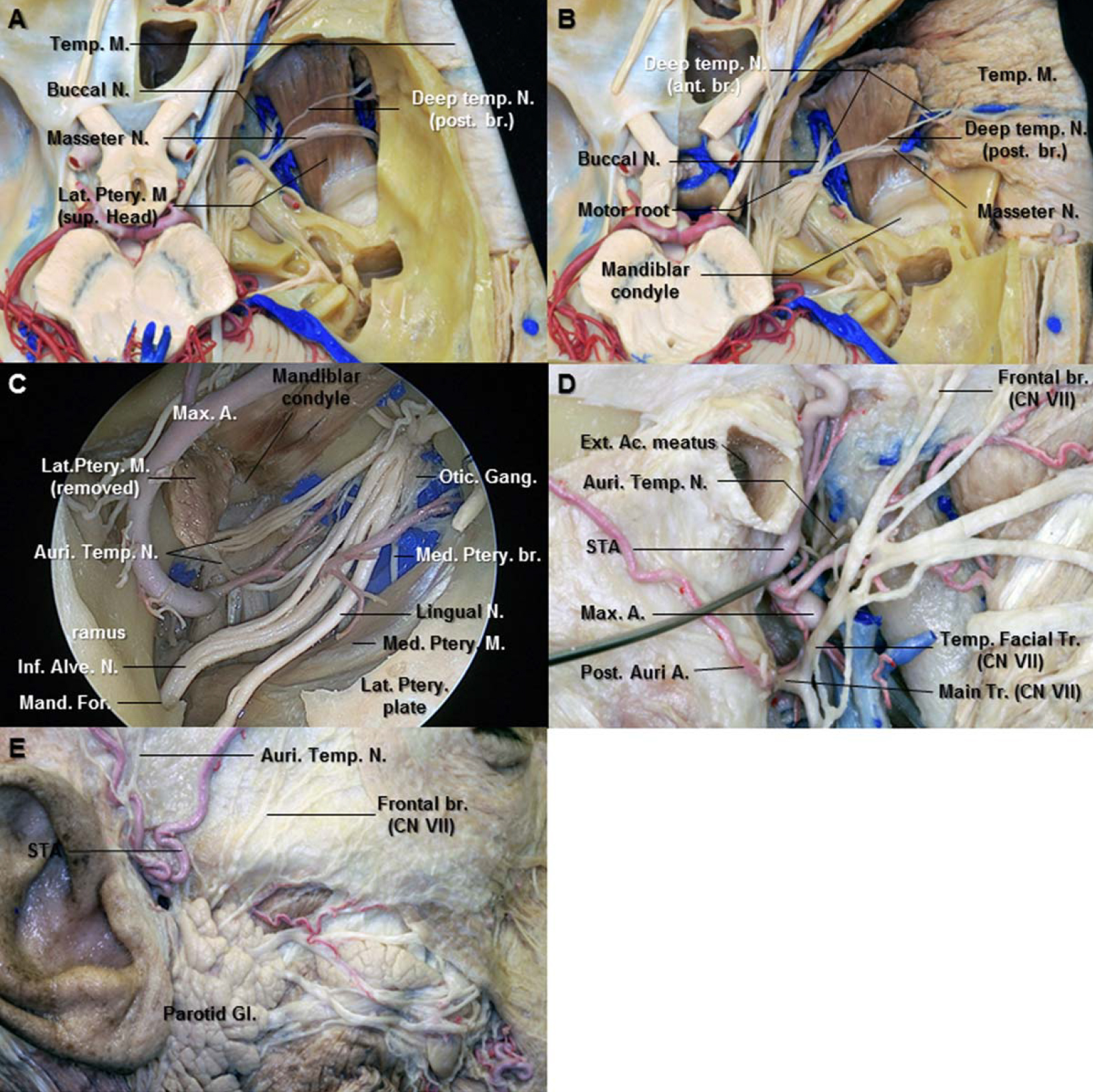 Figure 12. A. Superior view after removing the bone of middle fossa. The posterior deep temporal nerve runs on the superior surface of the superior head of the lateral pterygoid muscle. The masseter nerve is the most posterior branch among the anterior division of the mandibular nerve. B. The squamous portion of the temporal bone has removed to expose deep surface of the temporal muscle. The anterior deep temporal nerve passes between the superior and inferior heads of the lateral pterygoid muscle. The deep temporal nerves enter the deep surface of the anterior portion of the temporal muscle. C. Enlarged view of the right infratemporal fossa. The middle meningeal artery passes between the two roots of the auriculotemporal nerve. The auriculotemporal nerve runs medial to lateral behind the neck of the mandible. D. Lateral view of the right mandibular neck area. The parotid gland has removed to expose the auriculotemporal and facial nerves. The auriculotemporal nerve gives off the parotid branches and ascends in the parotid gland between the temporomandibular joint and external acoustic meatus. It communicates with facial nerve at the posterior border of the mandibular ramus. E. Lateral view of the right preauricular area. The auriculotemporal nerve ascends posterior to the superficial temporal artery over the posterior root of zygoma. The frontal branches of the facial nerve pass over the zygomatic arch. Abbreviations: A., artery; Ac., acoustic; Ant., anterior; Auri. Temp. N., auriculotemporal nerve; Br., branch; Ext., external; Gang., ganglion; Gl., gland; Inf. Alv. N., inferior alveolar nerve; Lat., lateral; M., muscle; Mand. For., mandibular foramen; Max., maxillary; Med., medial; N., nerve; Post., posterior; Post. Auri. A., posterior auricular artery; Ptery., pterygoid; STA., superficial temporal artery; Sup., superior; Temp., temporal; Tr., trunk. (Images courtesy of AL Rhoton, Jr.)