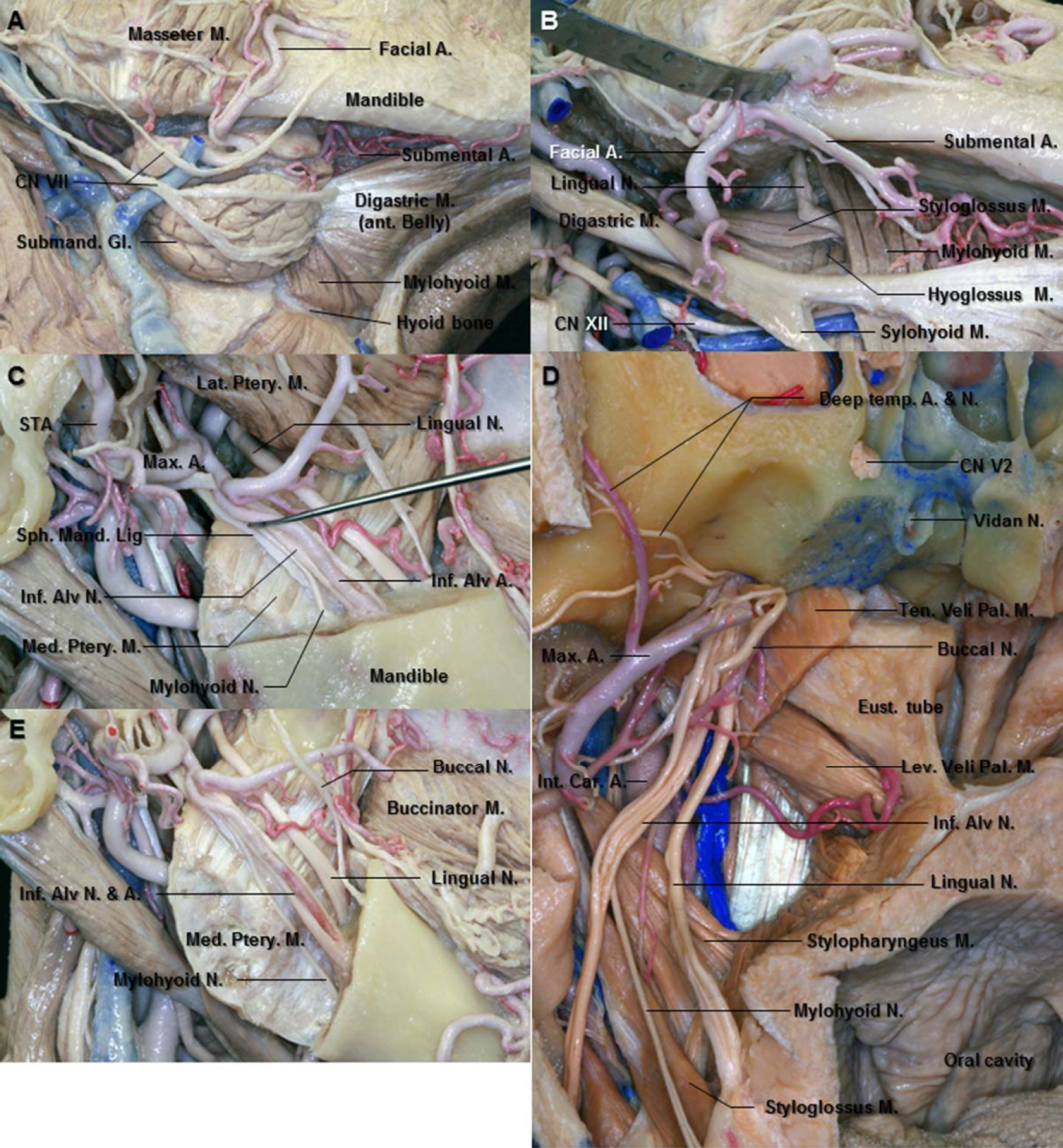 Figure 13. A. Inferolateral view of the right submandibular area. The facial nerves run over the submandibular gland which lie on the digastric tendon. B. Enlarged view of the right submandibular triangle. The submandibular gland has been removed to expose the contents of the submandibular triangle. After passing between the mandibular ramus and the medial pterygoid muscle, the lingual nerve crosses the styloglossus muscle and runs between the hyoglossus and mylohyoid muscles above the deep part of the submandibular gland. C. Lateral view of the right infratemporal fossa. The lingual nerve courses down and forward between the mandibular ramus (removed) and medial pterygoid muscle, lying anterior and slightly deep to the inferior alveolar nerve. The sphenomandibular ligament is a flat, thin band descending from the sphenoidal spine and widening to reach the lingual of the mandibular foramen. D. Anterior view of the right infratemporal fossa. The lingual nerve is anterior and medial to the inferior alveolar nerve. The inferior alveolar nerve gives rise to the mylohyoid nerve before it enters the mandibular foramen. It then emerges in the submandibular triangle and supplies both mylohyoid and anterior belly of the digastric muscles. E. The angle of mandible has been removed. The mylohyoid nerve runs down and forward between the mandible and the medial pterygoid muscle and lodges in the mylohyoid groove. The buccal nerve emerges from the undersurface of the ramus of the mandible. Abbreviations: A., artery; Alv., alveolar; Ant., anterior; Car., carotid; CN., cranial nerve; Eust., Eustachian; Gl., gland; Inf., inferior; Int., internal; Lat., lateral; Lev. Vel. Pal. M., levator veli palatini muscle; M., muscle; Max., maxillary; Med., medial; N., nerve; Ptery., pterygoid; Sph. Mand. Lig., sphenomandibular ligament; STA., superficial temporal artery; Temp., temporal; Ten. Vel. Pal. M., tensor veli palatini muscle. (Images courtesy of AL Rhoton, Jr.)