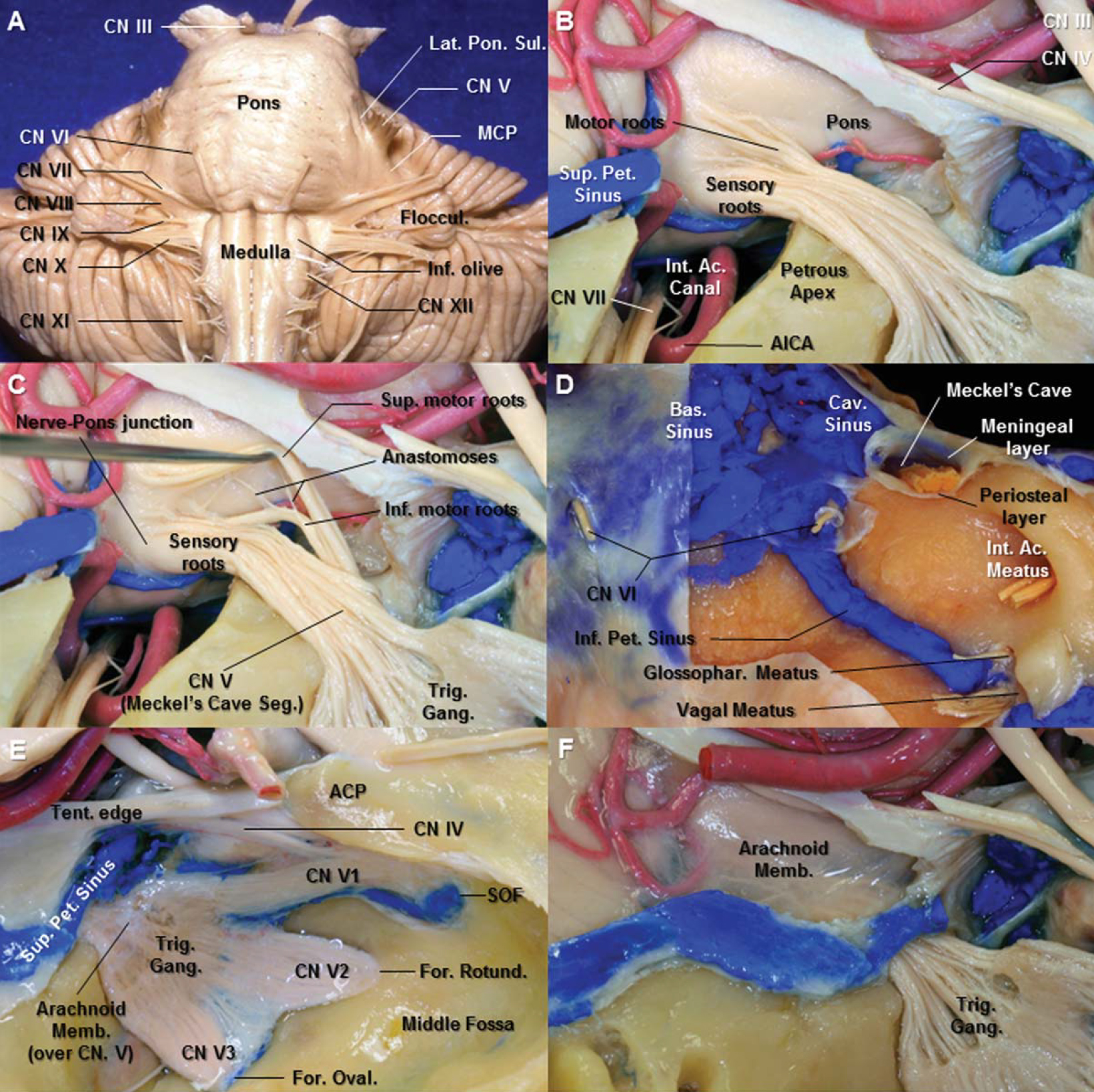 Figure 2. A. Anterior view of the brain stem. The middle cerebellar peduncle is separated from the pons by a lateral pontine sulcus. Just lateral to the lateral pontine sulcus is the emergence of the trigeminal nerve. From the microsurgical standpoint, the apparent origin of the trigeminal nerve can be considered as the limit between the pons and the middle cerebellar peduncle. B. Lateral view of the right trigeminal root entry zone. The tentorium and the occipital lobe have been removed to expose the root entry zone of the trigeminal nerve. The small roots emerge from the pons superomedial to the large sensory root. The roof of the internal acoustic canal has been removed. C. The two motor rootlets groups of the trigeminal nerve, a primary superior and a secondary inferior motor rootlets, are visualized after superior retraction of the superior motor group from the sensory root. D. The dura of the anterior aspect of the posterior fossa has been removed to expose the basilar plexus, cavernous sinus, and inferior petrosal sinus. Meckel's cave is a cleft-like dural pocket that originates from the dura propria of the posterior fossa. The cave is situated at the trigeminal impression between the meningeal layer (dura propria) and the periosteal layer of dura. E. The arachnoid membrane from the posterior fossa extends to Meckel's cave, forming a pocket within the cave, continues along the rootlets of the trigeminal nerve. F. The arachnoid membrane over the trigeminal root has been removed. The superior petrosal sinus extends medially through the upper edge of the porus of Meckel's cave and above the trigeminal nerve to join the cavernous sinus. Abbreviations: Ac., acoustic; ACP., anterior clinoid process; AICA., anterior inferior cerebellar artery; Bas., basilar; Cav., cavernous; CN., cranial nerve; For., foramen; Gang., ganglion; Glossophar., glossopharyngeal; Inf., inferior; Int., internal; MCP., middle cerebellar peduncle; Memb., membrane; Oval., ovale; Pet., petrosal; Rotund., rotundum; Seg., segment; SOF., superior orbital fissure; Sup., superior; Tent., tentorium; Trig., trigeminal. (Images courtesy of AL Rhoton, Jr.)