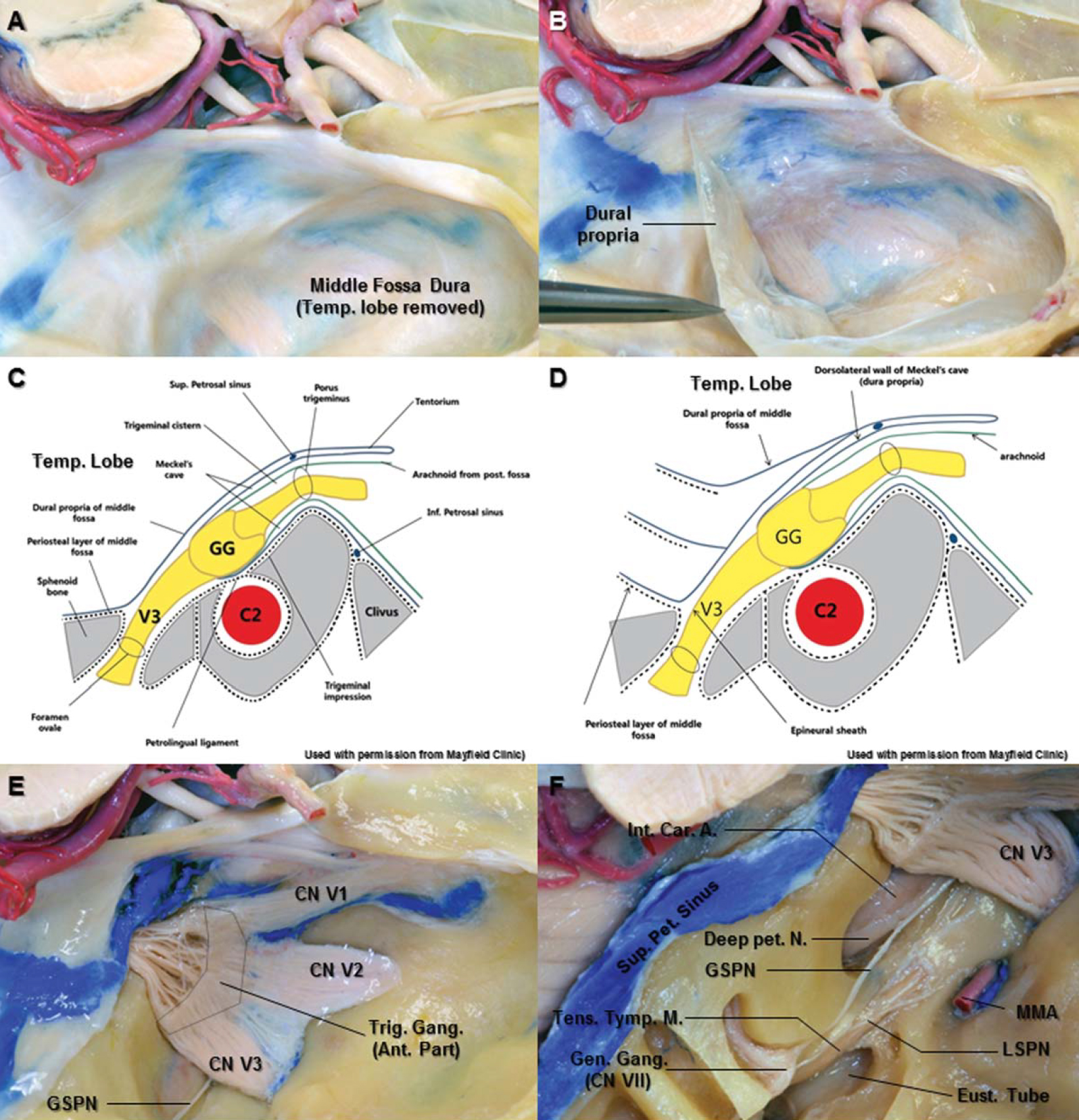 Figure 3. A. The right temporal lobe has been removed to expose the middle fossa dura. B. The dura propria of the middle fossa dura has peeled off to the posterior direction from the middle fossa floor. The trigeminal nerve has visualized. C. Oblique coronal section along the line between the porous trigeminus and the foramen ovale (used with permission from Mayfield Clinic). At the anterior margin of the trigeminal ganglion, the dorsolateral and ventromedial walls of Meckel's cave become an epineural sheath of each division of trigeminal nerve. The contents of the Meckel's cave are the sensory and motor roots of the trigeminal nerve, trigeminal ganglion, and arachnoid layer. D. The endosteal incision near the foramen ovale leads to cleavage plane between the outer layer (dura propria of middle fossa, meningeal layer) and inner layer (epineural sheath of the mandibular nerve) (used with permission from Mayfield Clinic). E. The anterior portion of the trigeminal ganglion tightly adheres to the overlying arachnoid and dura propria of Meckel's cave without any potential subarachnoid space. The arachnoid layer has been easily removed from the posterior portion of the trigeminal ganglion due to actual subarachnoid space. F. Superior view of the right temporal bone. The bone on the middle fossa floor has been removed laterally to show the petrous segment of the carotid artery, the Eustachian tube, the tensor tympani muscle, and geniculate ganglion of the facial nerve. The greater superficial petrosal nerve is separated from the horizontal segment of the petrous internal carotid artery. It passes under V3 and joins the deep petrosal nerve from the sympathetic carotid plexus to become the vidian nerve in the vidian canal. Abbreviations: A., artery; C2., petrous carotid artery; Car., carotid; CN., cranial nerve; Eust., Eustachian tube; Gang., ganglion; Gen., geniculate; GG., gasserian ganglion; GSPN., greater superficial petrosal nerve; Inf., inferior; Int., internal; LSPN., lesser superficial petrosal nerve; MMA., middle meningeal artery; N., nerve; Pet., petrosal; Sup., superior; Tens. Tymp.M., tensor tympani muscle; Trig., trigeminal; V3., mandibular division. (Images courtesy of AL Rhoton, Jr.)