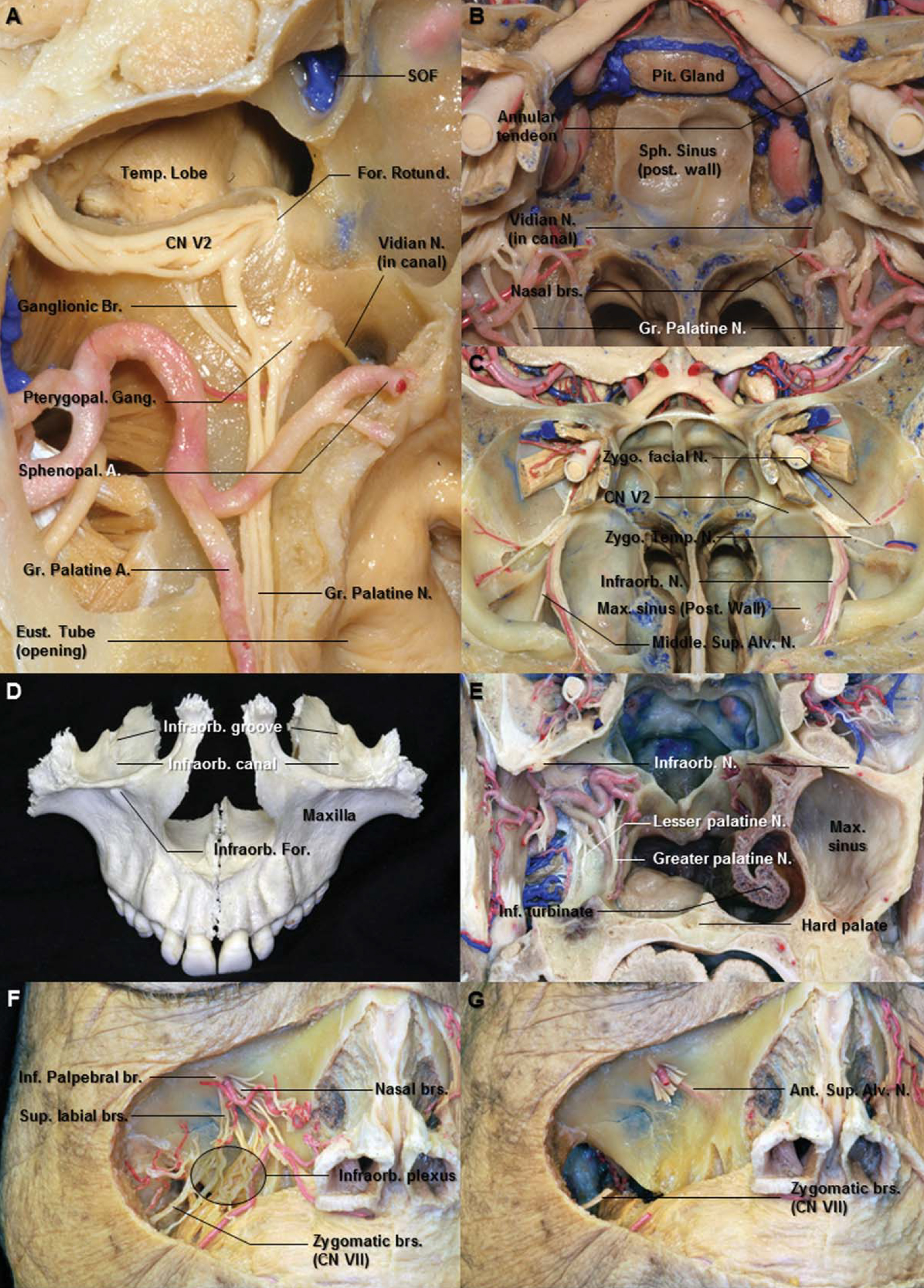 Figure 9. A. Enlarged anterior oblique view of the pterygopalatine fossa. The pterygopalatine ganglion receives communicating rami from the maxillary nerve. The sphenopalatine branch passes through the sphenopalatine foramen to enter the lateral nasal cavity. B. The terminal branch of the maxillary artery and nasal branches arising from the pterygopalatine ganglion penetrate the lateral wall of the nasal cavity to course along the sphenoid face. C. Anterosuperior view of the orbit. The maxillary nerve gives rise to the infraorbital, zygomatic, and superior alveolar nerves. The anterior wall of the pterygopalatine fossa is formed by the posterior wall of the maxillary sinus. D. Anterosuperior view of the maxilla. The maxillary nerve enters the infraorbital groove and canal by passing through the inferior orbital fissure and continues as the infraorbital nerve. The infraorbital nerve emerges in the face through the infraorbital foramen. E. The posterior wall of the right maxillary sinus has been removed to expose the pterygopalatine fossa. The maxillary artery is located anterior to the pterygopalatine ganglion. The palatine nerves descend through the palatine foramina of the maxilla located at the inferior tip of the pterygopalatine fossa. F. The right buccolabial muscles have been removed to expose the branches of the infraorbital nerve. The branches of the infraorbital nerve communicate with the branches of the facial nerve to form infraorbital plexus in the infraorbital space. G. The branches of the infraorbital nerve have been removed. The infraorbital nerve gives rise to anterior superior alveolar nerve just behind the infraorbital exit through the foramen. Abbreviations: A., artery; Alv., alveolar; Ant., anterior; Br., branch; CN., cranial nerve; For., foramen; Gr., great; Inf., inferior; Infraorb., infraorbital; Max., maxillary; N., nerve; Pit., pituitary; Post., posterior; Pterygopal., pterygopalatine; Rotund., rotundum; SOF., superior orbital fissure; Sph., sphenoid; Sphenopal., sphenopalatine; Sup., superior; Temp., temporal; Zygo., zygomatic. (Images courtesy of AL Rhoton, Jr.)