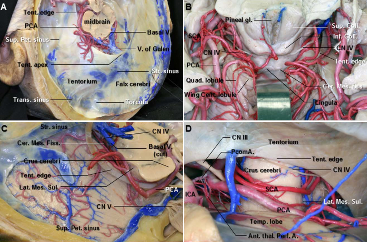 Figure 1. A. Superolateral view of the falx and tentorium after removing the cerebrum. The tentorial edges sweep along the lateral margin of the cerebral peduncle. The tentorial apex is located at the junction of the vein of Galen and the straight sinus. The tentorial edges slope downward from the apex. B. Superoposterior view of the cerebellomesencephalic fissure. The central lobule and culmen of the cerebellar vermis have been retracted posteriorly to expose the cerebellomesencephalic fissure, which extends forward between the cerebellum and midbrain. The anterior wall of the fissure is formed in the midline by the collicular plate and lingual, and laterally by the superior cerebellar peduncles. The trochlear nerve arises below the inferior colliculi. The initial part of the cisternal segment of the trochlear nerve is followed laterally in the cerebellomesencephalic fissure. C. Superolateral view of the right tentorial surface of the cerebellum. The tentorial edge sweeps along the lateral margin of the cerebral peduncle. The tentorium has been removed while the tentorial venous sinuses and tentorial edge have been preserved. The posterior cerebral artery runs posteriorly along the lateral margin of the midbrain above the tentorial edge. D. Subtemporal view. The right temporal lobe has been elevated to expose the PCA, SCA, and trochlear nerve in the anterior and middle incisural spaces. The PCA passes above and the SCA below the oculomotor nerve. The trochlear nerve courses around the side of the brainstem. It becomes subtentorial at the anterolateral part of the cerebral peduncle. Ant. Thal. Perf. A., anterior thalamoperforating artery; Cent., central; Cer. Mes. Fiss., cerebellomesencephalic fissure; CN., cranial nerve; Coll., colliculus; ICA., internal carotid artery; Inf., inferior; Lat. Mes. Sul., lateral mesencephalic sulcus; PCA., posterior cerebral artery; PcomA., posterior communicating artery; Pet., petrosal; Quad., quadrangular; SCA., superior cerebellar artery; Str., straight; Sup., superior; Tent., tentorium; Temp., temporal; Trans., transverse; V., vein. (Images courtesy of AL Rhoton, Jr.)