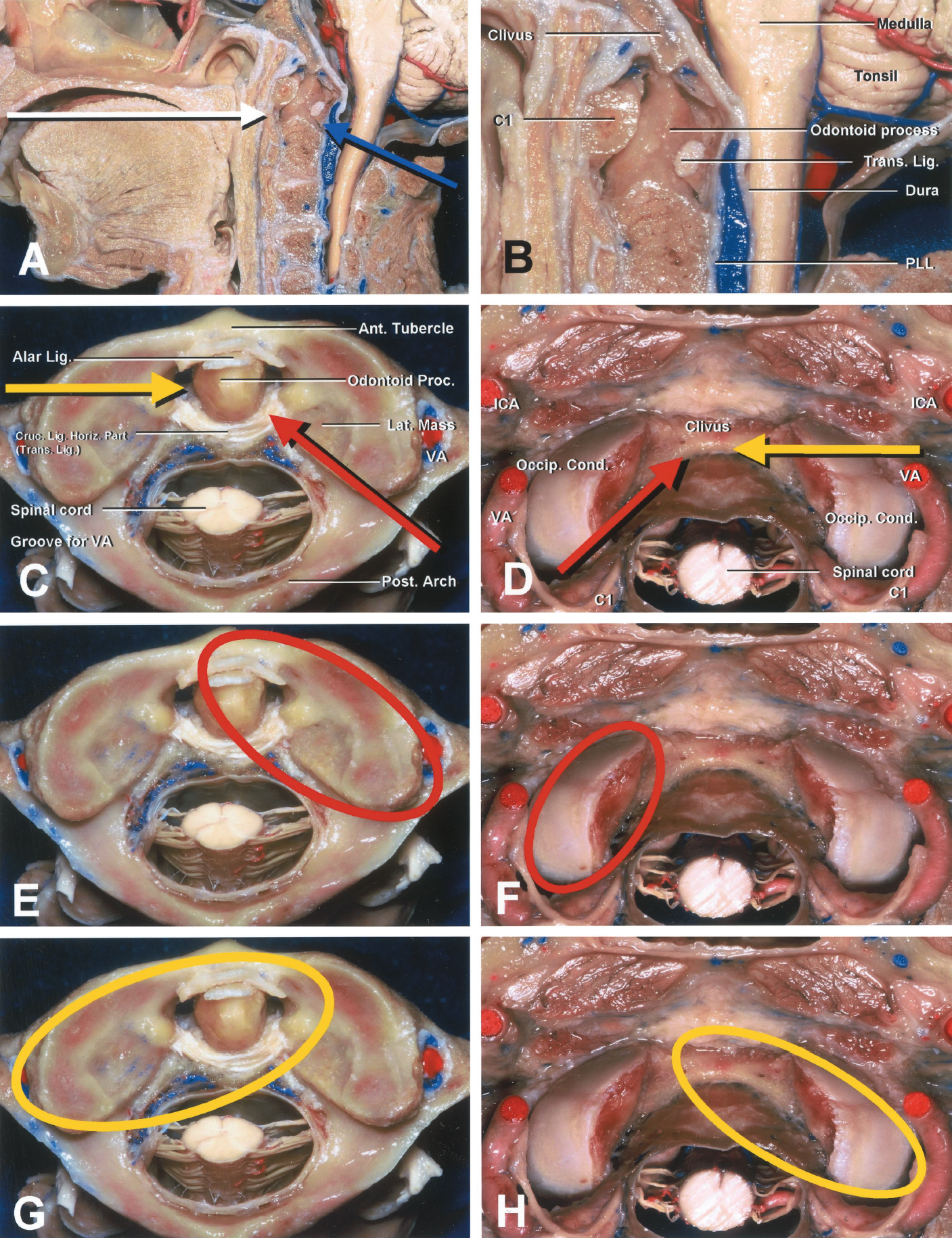 FIGURE 1.  Surgical approaches to an extradural lesion in the anterior aspect of the CVJ. A and B (enlarged view), anterior transoral approach (white arrow) and posterior, far lateral, and extreme lateral approaches (blue arrow). The atlanto-occipital transarticular approaches to anterior extradural lesions of the CVJ are shown in the remaining panels. C, E, and G, superior views of the upper surface of the atlas. D, F, and H, inferior views of the occipital bone and foramen magnum. A and B, The extradural region of the anterior aspect of the CVJ consists of the occipital bone, atlas, axis, and its related articulations and ligaments. C and D, direction of the right far lateral (red arrows) and left extreme lateral (yellow arrows) atlanto-occipital transarticular approaches. E and F, the far lateral atlantooccipital transarticular approach provides access to the anterior or anterolateral aspects of the CVJ, including the odontoid process and the ipsilateral lower clivus. The red circled area indicates the extent of the drilling of the atlantal condyle and odontoid process (E) and occipital condyle (F). G and H, the extreme lateral atlanto-occipital transarticular approach proceeds to the anterior aspect of the CVJ, including the dens, lower clivus, and medial surface of the contralateral atlanto-occipital joint from the lateral perspective. The yellow circled area indicates the extent of the drilling of the atlantal condyle and odontoid process (G) and occipital condyle (H). Ant., anterior; Cond., condyle; Cruc., cruciform; Horiz., horizontal; ICA, internal carotid artery; Lat., lateral; Lig., ligament; Occip., occipital; Post., posterior; Proc., process; PLL, posterior longitudinal ligament; Trans., transverse; VA, vertebral artery. (Images courtesy of AL Rhoton, Jr.)