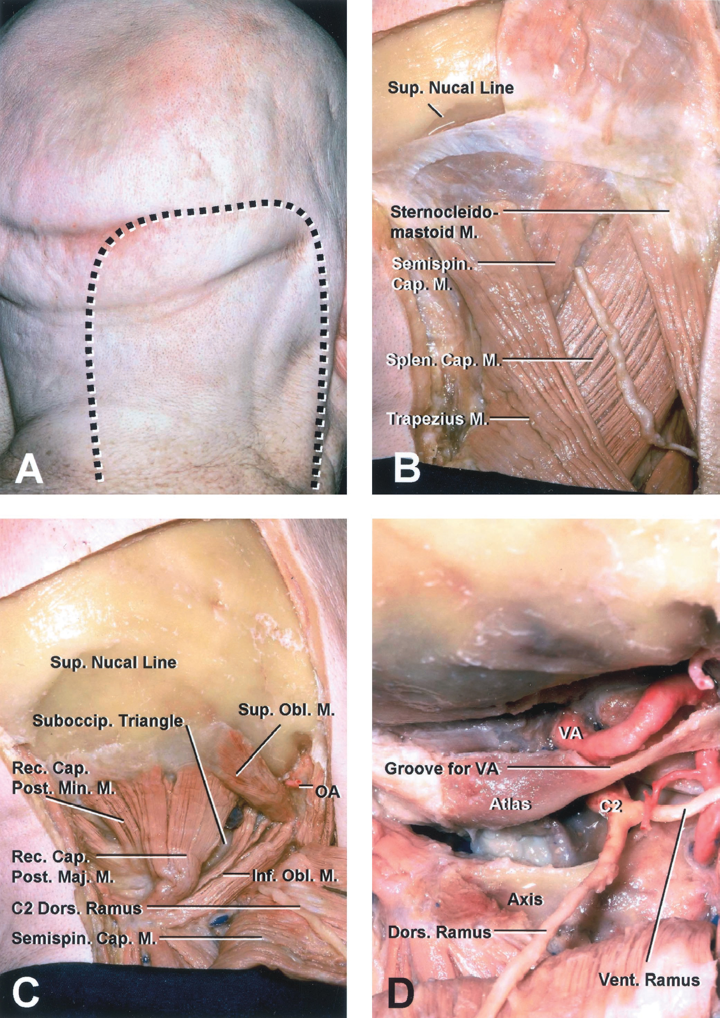 FIGURE 5 (A–D).  Far lateral atlanto-occipital transarticular approach: muscular (A–D) and extradural (E–J) stages. A, to gain access to the anterior aspect of the CVJ laterally, the muscular exposure is performed using a horseshoe scalp flap because it provides for easier reflection of the muscle layers inferiorly or inferolaterally, thus allowing a wider exposure of the lateral side and room for an upper cervical laminectomy. The muscles are reflected in a single layer with the scalp, because reflecting the muscles individually makes the closure more difficult and is associated with a high incidence of wound problems, such as pseudomeningocele. The incision begins in the midline approximately 5 cm below the external occipital protuberance and is directed upward to just above the external occipital protuberance, turns laterally just above the superior nuchal line, reaches the mastoid, and turns downward in front of the posterior border of the sternocleidomastoid muscle. B, the skin flap is reflected downward and medially to expose the most superficial layer of muscles formed by the sternocleidomastoid and splenius capitis muscles laterally and the trapezius and the semispinalis capitis muscles medially. C, reflecting the semispinalis capitis downward exposes the superior and inferior oblique muscles and the transverse process of the atlas, which has a prominent apex palpable through the skin between the mastoid process and mandibular angle. The suboccipital triangle is limited by three muscles (above and medially by the rectus capitis posterior major, above and laterally by the superior oblique, and below and laterally by the inferior oblique). D, the suboccipital triangle is opened by reflecting the rectus capitis posterior major inferiorly and medially, the superior oblique laterally, and the inferior oblique medially. Opening the triangle exposes the portion of the vertebral venous plexus that surrounds the vertebral artery, which passes behind the atlanto-occipital joint and crosses the upper edge of the posterior arch of the atlas. The C2 nerve emerges between the posterior arch of the atlas and the lamina of the axis. Distal to the ganglion, the nerve divides into larger dorsal and smaller ventral rami. A-O, atlanto-occipital; Ant., anterior; Art., articular; Cap., capitis; CN, cranial nerve; Cond., condyle; Dent., dentate; Dors., dorsal; For., foramen; Inf., inferior; Int., internal; Jug., jugular; Lig., ligament; Long., longitudinal, longus; M., muscle; Maj., major; Min., minor; OA, occipital artery; Obl., oblique; Occip., occipital; P.I.C.A., posteroinferior cerebellar artery; Post., posterior; Proc., process; Rec., rectus; Semispin., semispinalis; Splen., splenius; Suboccip., suboccipital; Sup., superior; Trans., transverse; V., vein; VA, vertebral artery; Vent., ventral.  (Images courtesy of AL Rhoton, Jr.)