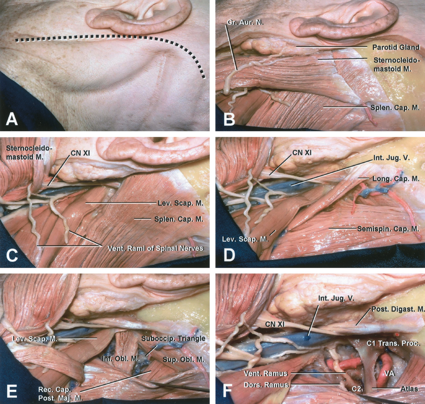 FIGURE 6 (A–F) . Extreme lateral atlanto-occipital transarticular approach: muscular (A–F) and extradural (G–N) stages. A, the skin incision starts approximately 6 cm below the tip of the mastoid process and follows the anterior border of the sternocleidomastoid muscle up to the level of the external acoustic meatus, where it curves posteriorly above the attachment of the muscle. B and C, the insertion of the sternocleidomastoid muscle is divided, leaving a musculofascial cuff attached to the mastoid process for closure. Care should be taken to identify the spinal accessory (XI) nerve, which runs in a fatty and lymphatic sheath that covers the deep aspect of the muscle. The average distance between the tip of the mastoid process and the accessory nerve entering the sternocleidomastoid muscle is 3.5 cm. Therefore, the upper few centimeters of the muscle can be dissected quickly, but the lower portion must be dissected carefully. Reflecting the sternocleidomastoid inferolaterally exposes the plane between the internal jugular vein and the sternocleidomastoid muscle. D and E, reflecting the splenius capitis, semispinalis capitis, and longissimus capitis muscles inferomedially exposes the suboccipital triangle and the attachment of the superior and inferior oblique, the rectus capitis lateralis, and the levator scapulae muscles to the transverse process of the atlas. The transverse process of the atlas can be palpated in the exposure. F, reflecting the muscles forming the suboccipital triangle exposes the vertebral artery between the transverse foramen of the axis and the point where it penetrates the dura mater. The C2 nerve root is exposed between the atlas and the axis. The posterior belly of the digastric muscle is preserved to protect the facial nerve. A-O, atlanto-occipital; Ant., anterior; Art., articular; Aur., auricular; Br., branch; Cap., capitis; CN, cranial nerve; Cond., condyle; Cont., contralateral; Digast., digastric; Dors., dorsal; For., foramen; Gr., great; Inf., inferior; Int., internal; Jug., jugular; Lat., lateralis; Lev., levator; Long., longissimus or longus; M., muscle; Maj., major; N., nerve; OA, occipital artery; Obl., oblique; Occip., occipital; Post., posterior; Proc., process; Rec., rectus; Scap., scapula; Semispin., semispinalis; Splen., splenius; Sternocleidomas., sternocleidomastoid; Suboccip., suboccipital; Sup., superior; Trans., transverse; V., vein; VA, vertebral artery; Vent., ventral. (Images courtesy of AL Rhoton, Jr.)