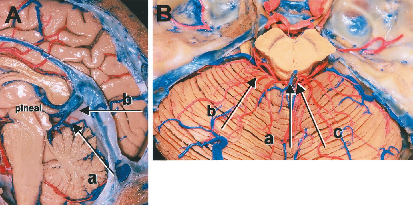 Figure 1. Photographs demonstrating a variety of surgical approaches to the posterior incisural space. A: a, infratentorial approach; b, supratentorial approach; a + b, combined supra-/infratentorial approach. B: a, median infratentorial approach; b, paramedian supracerebellar approach; c, occipital transtentorial approach. (Images courtesy of AL Rhoton, Jr.)