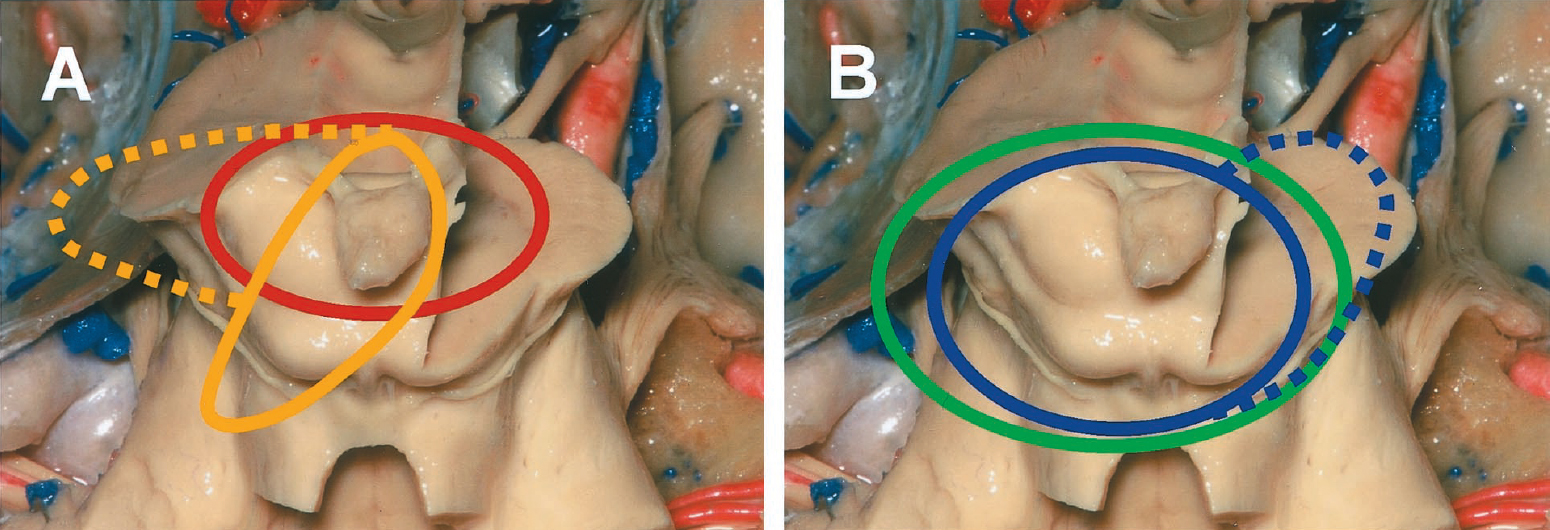 Figure 3. Representations of the mesencephalon and quadrigeminal plate, comparing the domains of exposure associated with posterior approaches to the posterior incisural space. A, infratentorial approaches. Red, infratentorial supracerebellar approach. Orange (broad line), left paramedian supracerebellar approach. Orange (broad and dotted lines), left supracerebellar transtentorial approach. B, supratentorial approaches. Blue (broad line), left occipital transtentorial approach. Blue (broad and dotted lines), left occipital bi-transtentorial/falcine approach. Green, left combined supra-/infratentorial-transsinus approach. With additional incisions of the tentorium or the tentorium and falx, the operative views become wider in both the infratentorial and supratentorial approaches (dotted lines). (Images courtesy of AL Rhoton, Jr.)