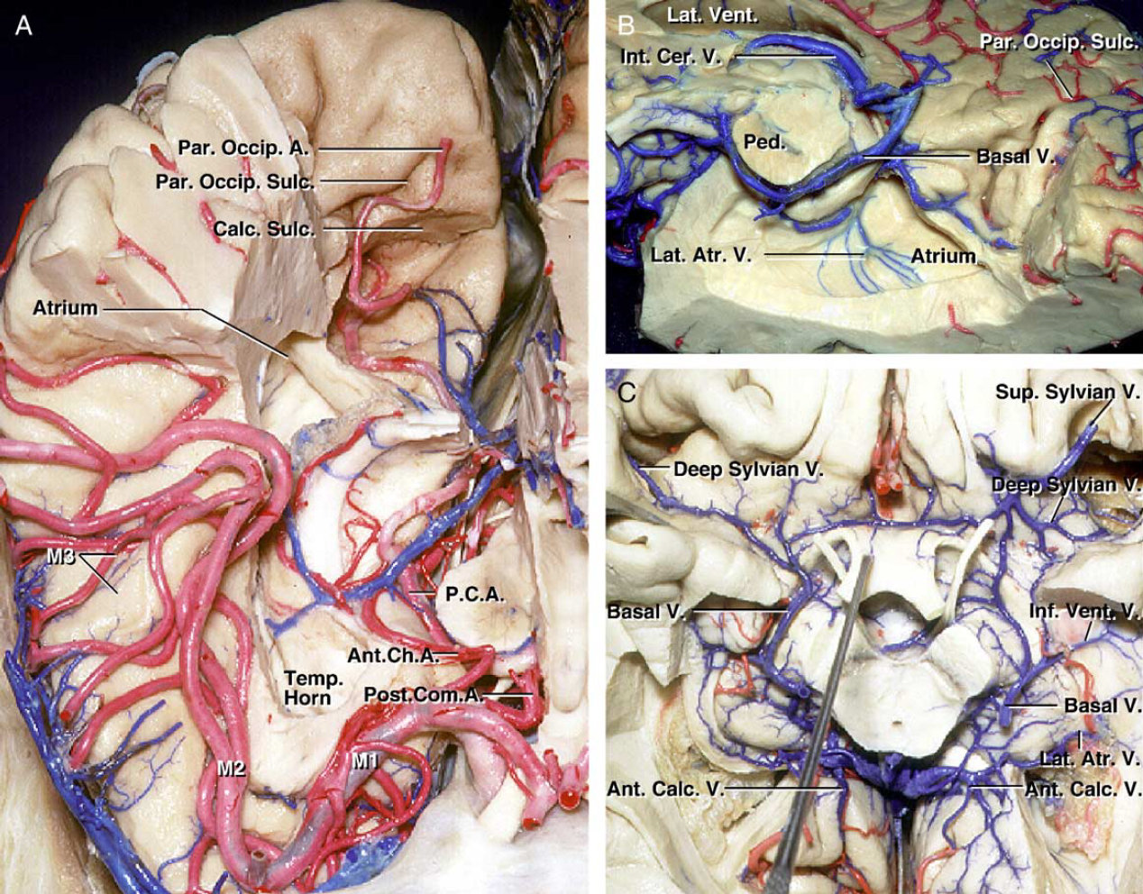 Figure 3. Choroidal arteries and ventricular veins. A: The anterior part of the right hemisphere has been removed down to the level of the temporal lobe and the midbrain. The anterior choroidal artery passes around the upper medial part of the uncus to reach the temporal horn. It passes posteriorly and dorsally along the plexus. B: Anteroinferior part of the right temporal and occipital lobes have been removed to expose the atrium from below. The lateral atrial veins drain forward on the medial wall of the atrium toward the choroidal fissure. C: Inferior view of the basal cistern. The left atrial veins join the anterior calcarine vein before emptying into the vein of Galen. (Images courtesy of AL Rhoton, Jr.)