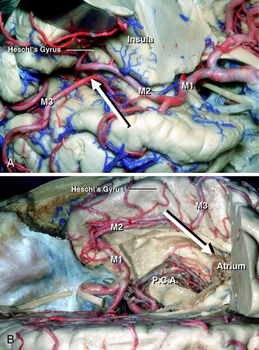 Figure 5. Transsylvian approach to the atrium of the lateral ventricle. A: The anterior parts of the right insula and basal ganglia have been removed. The sylvian fissure is widely opened to identify the transverse gyrus of Heschl, which is an orienting landmark for the atrium, on the superior surface of the temporal lobe (arrow). B: Superior view of the central core of the hemisphere. The medial end of the transverse gyrus of Heschl corresponds to the posterior end of the insular cortex. The longitudinal axis corresponds to the access to the atrium through the posterior end of the insular cortex (arrow). MI;MI portion of the middle cerebral artery, M2;M2 portion of the middle cerebral artery, M3;M3 portion of the middle cerebral artery, PCA; posterior cerebral artery. (Images courtesy of AL Rhoton, Jr.)
