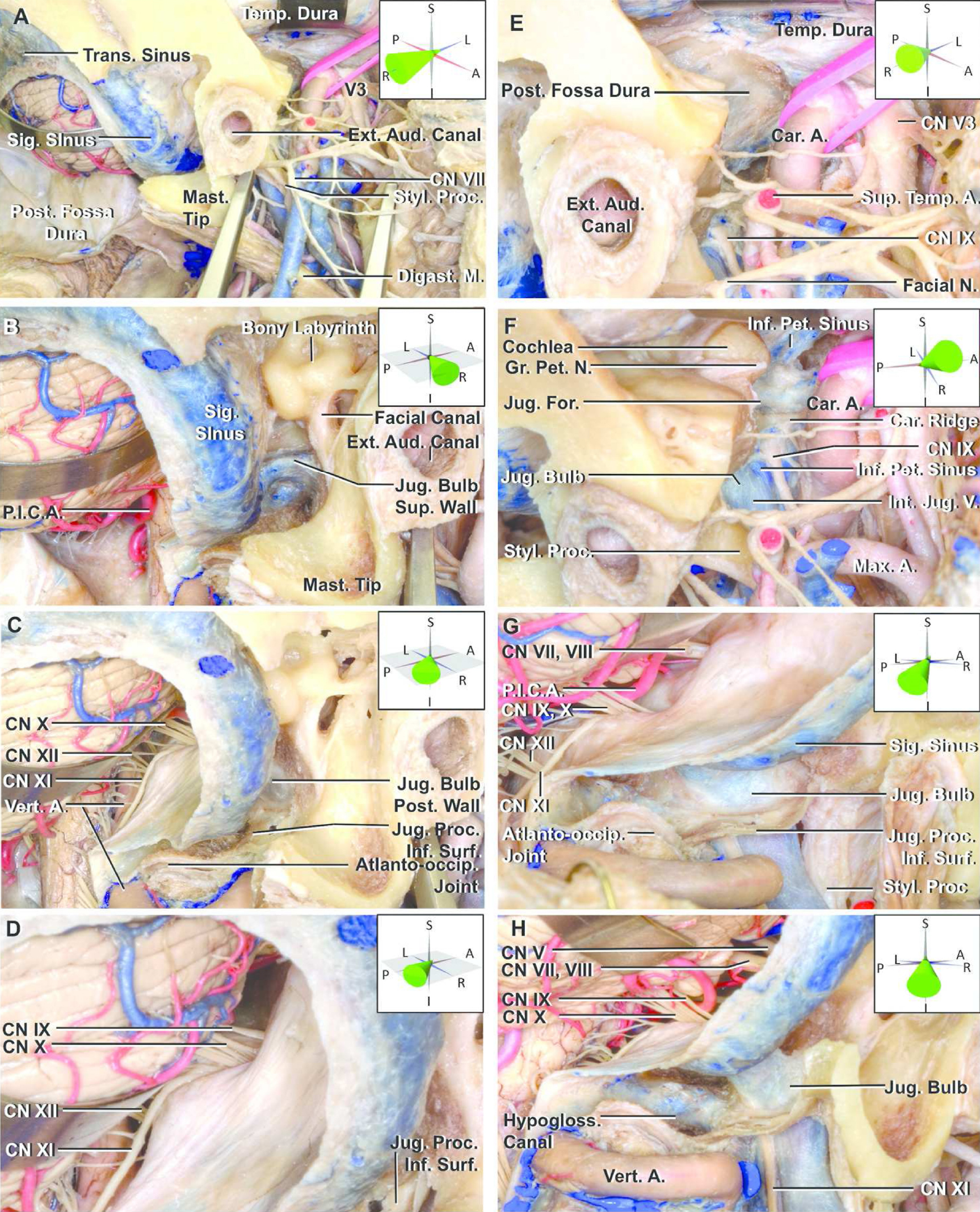 Figure 5. Multi-approach exposure of the jugular foramen. (A–H) The far lateral, preauricular transtemporal infratemporal, and transmastoid infralabyrinthine exposures have been completed on the right side to show the extent of exposure of the jugular bulb that can be achieved without resection of the external ear canal and translocation of the facial nerve. The parotid has been removed to make it easier to see the facial nerve and the area around the jugular foramen. The angle of view of each figure is shown in the insert using 3D coordinate axes. (A) Lateral view. The mastoid tip, styloid process, and external ear canal are obstacles to exposing the jugular foramen. (B) Posterolateral exposure viewed parallel to the external ear canal. The superior and lateral surfaces of the jugular bulb can be identified from this angle. In this view, the mastoid tip does not block access to the lateral aspect of the jugular bulb. However, the facial canal blocks access to the jugular bulb. (C) A 45° posterolateral view. The jugular process has been removed while preserving its inferior surface. Removing the jugular process exposes the posterior wall of the jugular bulb. (D) Rotating the view posteriorly provides a view of cranial nerves (CNs) IX, X, and XI entering the dural roof of the jugular foramen. (E) Lateral view of the preauricular subtemporal infratemporal fossa approach. The floor of the middle fossa has been removed and the medial half of the vaginal process of the tympanic part of the temporal bone drilled to expose the sigmoid sinus at the anterior edge of the jugular foramen. The parotid gland has been removed to facilitate the view of the anterior edge of the jugular foramen. (F) Superolateral view. The floor of the middle fossa lateral to the cochlea has been removed. The inferior petrosal sinus empties into the internal jugular vein just below the jugular bulb. The glossopharyngeal nerve descends through the dural glossopharyngeal meatus and turns downward lateral to the inferior petrosal sinus. (G) Lateral suboccipital (retrosigmoid) approach. This approach accesses the dural roof of the jugular foramen. Removing the jugular process of the temporal bone exposes the posterior and inferior surfaces of the jugular bulb. In this view, the vertebral artery partially blocks the view of the course of the accessory nerve. (H) View lateral to that shown in panel G. The intracranial, posterior/inferior surfaces of the jugular foramen, and hypoglossal canal have been exposed. The course of the accessory nerve is visible without translocation of the vertebral artery. A., artery; Atlanto-occip., atlanto-occipital; Aud., auditory; Car., carotid; Dig., digastric; Ext., external; Gr., greater; Hypogloss., hypoglossal; Inf., inferior; Int., internal; Jug., jugular; M., muscle; Mast., mastoid; Max., maxillary; N., nerve; Pet., petrosal; P.I.C.A., posterior inferior cerebellar artery; Post., posterior; Proc., process; Sig., sigmoid; Styl., styloid; Sup., superior; Surf., surface; Temp., temporal; Trans., transverse; V., vein; Vert., vertebral. (Images courtesy of AL Rhoton, Jr.)