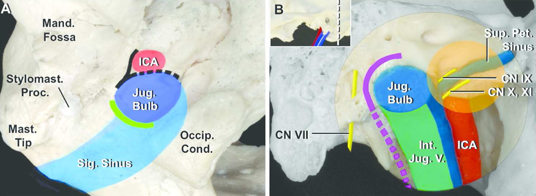 Figure 6. (A) Inferior view of jugular foramen. The site of the jugular bulb (dark blue), internal carotid artery (red), and sigmoid sinus (light blue) are shown on an image of the lower surface of the right jugular foramen. The margin of the foramen exposed by removal of the jugular process is shown (green). The area exposed by the preauricular infratemporal approach is along the anterolateral edge of the foramen (solid black line) and removal of the vaginal process of the tympanic part (black interrupted line) allows anterior transposition of the carotid artery and drilling of the anterior margin of the foramen. (B) Anterior view of the posterior face of a coronal section through the skull posterior to the right external acoustic meatus at the level of the white line shown in the insert in the upper corner of panel B. The infralabyrinthine mastoidectomy opens a wide area from the top of the dome to the lateral side of the jugular bulb (solid purple line in panel B). The cervical exposure provides access to the internal jugular vein below the foramen (interrupted purple line in panel B). The lateral suboccipital approach (retrosigmoid exposure) can access the jugular foramen intracranially (orange circle area in panel B). A., artery; Ac., acoustic; CN, cranial nerve; Car., carotid; Cond., condyle; Int., internal; JF, jugular foramen; Jug., jugular; Mand., mandibular; Mast., mastoid; Meat., meatus; N., nerve; Occip., occipital; Pet., petrosal; Proc., process; Sig., sigmoid; Stylomast., stylomastoid; V., vein. (Images courtesy of AL Rhoton, Jr.)
