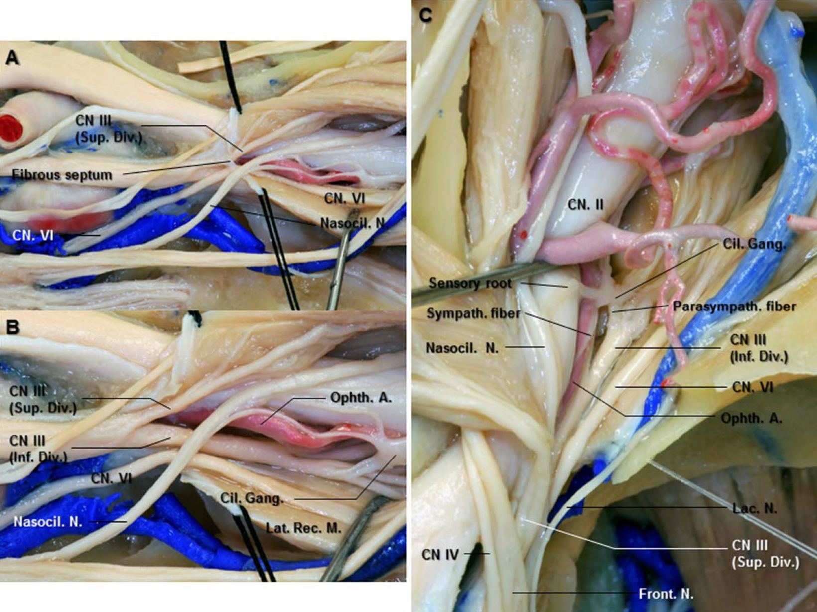 Figure 5. A: The annular tendon has been divided between the origin of the superior and lateral rectus muscles. The superior division of the oculomotor nerve passes upward to innervate the levator and superior rectus muscles. The inferior division courses inferior and medial as it proceeds through the SOF. The oculomotor nerve is separated from the nasociliary nerve by the fibrous septum in the oculomotor foramen. B: The fibrous septum has been removed to expose the oculomotor nerve in the foramen. At the orbital apex, the inferior division splits into three branches to innervate three muscles. The branch to the inferior oblique muscles gives rise to the motor parasympathetic root to the ciliary ganglion, situated on the inferolateral aspect of the optic nerve. C: The optic nerve has been retracted to the medial side to expose the sympathetic nerves that arise in the cervical sympathetic ganglia. The sensory root of the ciliary ganglion arises from the nasociliary nerve. Abbreviations: A., artery; Cil. Gang., ciliary ganglion; CN., cranial nerve; Div., division; Front., frontal; Inf., inferior; Lat., lateral; N., nerve; Nasocil., nasociliary; Ophth., ophthalmic; Parasympath., parasympathetic; Rec., rectus; Sup., superior; Sympath., sympathetic. (Images courtesy of AL Rhoton, Jr.)