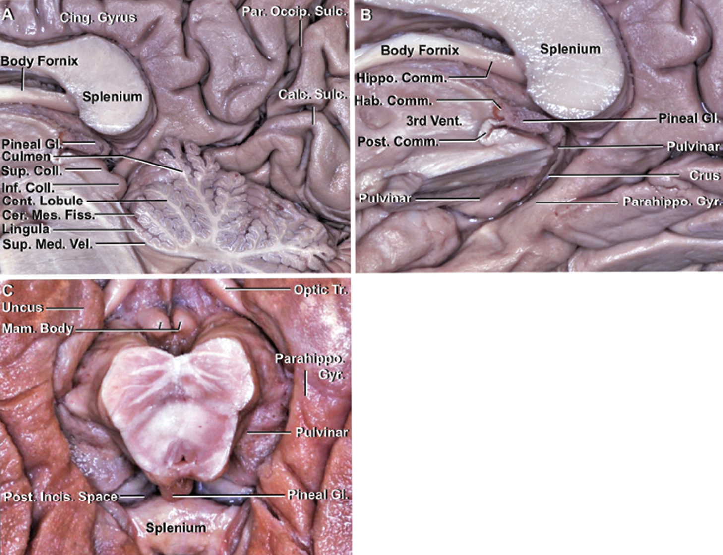 Figure. 3. Neural relationships of the posterior incisural space. A: Sagittal view of the posterior incisura space after removal of the left cerebral hemisphere, cerebellum, and brainstem. The anterior wall of the posterior incisural space is formed by the pineal gland, the superior and inferior colliculi, and the lingula of the vermis. The roof of the posterior incisural space is formed by the lower surface of the splenium and posterior part of the body of the fornix. The floor of the posterior incisural space is formed by the culmen of the vermis and central lobule. The posterior incisural space extends inferiorly into the cerebellomesencephalic fissure. B: Right posterosuperior view after removal of the right half of the brainstem at the level of the superior colliculus. The habenular and posterior commissures form the attachment of the gland to the posterior part of the third ventricle. The pulvinar, crus of the fornix, and parahippocampal gyrus form the lateral wall of the posterior incisural space. C: Inferior view of the medial temporal lobe and lateral wall of the posterior incisural space. The brainstem and cerebellum have been removed. The pulvinar, located just lateral to the pineal body, and the crus of the fornix, located posterior to the pulvinar, form the lateral wall of the posterior incisura space. Cer. Mes. = cerebellomesencephalic; Coll. = colliculus; Comm. = commissure; Hab. = habenular; Hippo. = hippocampal; Mam. = mammillary; Tr. = tract. (Images courtesy of AL Rhoton, Jr.)