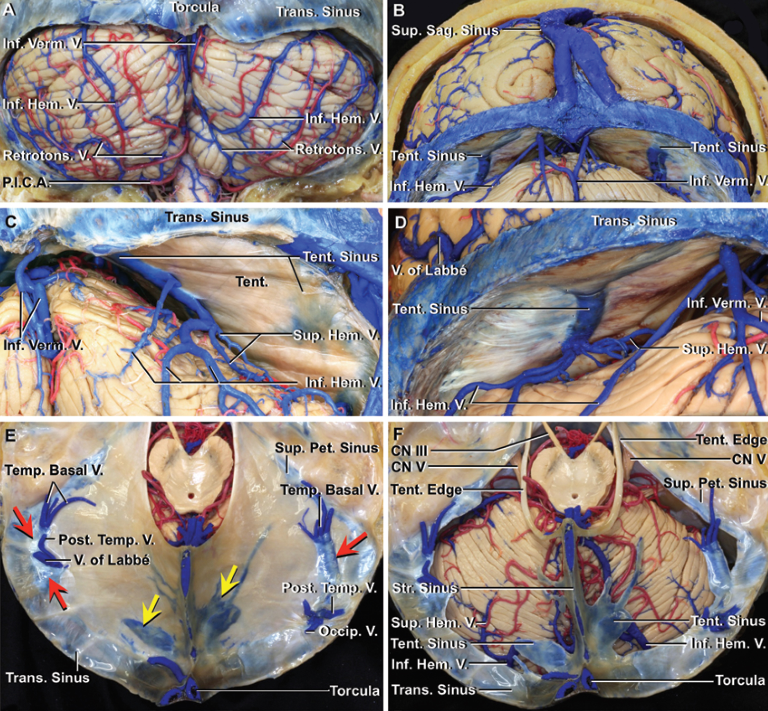 Figure. 6. Supracerebellar infratentorial microsurgical approaches to the pineal gland. A: Suboccipital surface of the cerebellum. The retrotonsilar veins ascend to join the inferior vermian veins, which ascend along the vermohemispheric fissures and empty into the transverse sinus near the torcula and midline. The inferior hemispheric veins ascend to empty into venous sinuses in the tentorium. The right inferior hemispheric veins anastomose with the retrotonsilar veins. B: Posterior view beneath the tentorium. The inferior vermian vein drains the tonsil and inferior vermis and adjacent part of the hemisphere and empties into the transverse sinus near the midline. The superior and inferior hemispheric veins drain the suboccipital and tentorial cerebellar surfaces and empty into the tentorial sinus, which may empty into either the straight (C) or transverse sinus (D). The off-midline infratentorial approaches directed between the 2 groups of hemispheric bridging veins can often access the pineal gland without sacrificing any of these bridging veins, while the midline approach will often require significant retraction or obliteration of some of these bridging veins. C: Posterior view beneath the right half of the tentorium. The superior and inferior hemispheric veins drain the suboccipital and tentorial cerebellar surfaces and empty into a tentorial sinus, which empties into the straight sinus in the posterior fossa. D: Posterior view beneath the left half of the tentorium. The superior and inferior hemispheric veins drain the suboccipital and tentorial cerebellar surfaces and empty into a tentorial sinus that empties into the transverse sinus. E: Superior view of the tentorium. The cerebral hemispheres have been removed while preserving the tentorium. Each half of the tentorium has 2 tentorial sinuses. The medial tentorial sinuses (yellow arrows) course medially to empty into the straight sinus near the junction of the straight and transverse sinuses. The lateral tentorial sinuses (red arrows), formed by the union of veins from the basal and lateral surfaces of the temporal and occipital lobes, including the vein of Labbé and temporobasal and occipital veins, course laterally to empty into the terminal portion of the transverse sinus. F: Superior view of the tentorial cerebellar surface. The tentorium has been removed while preserving the tentorial edges and the tentorial, superior petrosal, straight, and transverse sinuses. The medial tentorial sinuses formed by the union of the superior and inferior hemispheric veins course medially to empty into the torcula or straight sinus. P.I.C.A. = posterior inferior cerebellar artery; Pet. = petrosal; Retrotons. = retrotonsilar; Tent. = tentorial, tentorium; Trans. = transverse.
