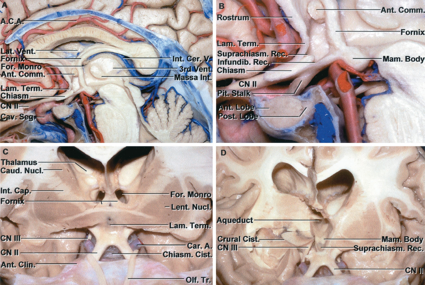 Figure 8.13 (A–D). Neural relationships in the suprasellar area. A, midsagittal section of the sella, pituitary gland, sphenoid sinus and third ventricle. The anterior part of the third ventricle is located above the sella. The columns of the fornix descend along the superior and anterior margins of the foramen of Monro to reach the mamillary bodies. The optic chiasm and stalk are located above the sella. The internal cerebral veins course in the roof of the third ventricle. B, enlarged view. The suprachiasmatic recess of the third ventricle is located between the lamina terminalis and the chiasm. The infundibular recess extends into the stalk in the area behind the chiasm. The lamina terminalis extends upward and is continuous with the rostrum of the corpus callosum. The thin part of the third ventricular floor between the chiasm and the mamillary bodies is suitable for a third ventriculostomy. The anterior commissure crosses the wall of the third ventricle in front of the columns of the fornix. The massa intermedium crosses the midportion of the third ventricle. C, the anterior part of the hemisphere has been removed to expose the lateral ventricles and suprasellar area. The optic nerve and chiasm are located above the sella. The chiasmatic cistern is located below the optic chiasm and opens upward between the optic nerves to the area in front of the lamina terminalis. The anterior commissure crosses the anterior wall of the third ventricle above the lamina terminalis. The anterior part of the third ventricle is located above the sella. The body of the lateral ventricle is situated above the third ventricle. The columns of the fornix form the superior and anterior margins of the foramen of Monro. The olfactory tracts pass above the optic nerves and the optic tracts pass above the oculomotor nerves. D, the cross section on the right hemisphere has been extended backward to the midportion of the temporal horn and thalamus. This exposes the oculomotor nerve arising o