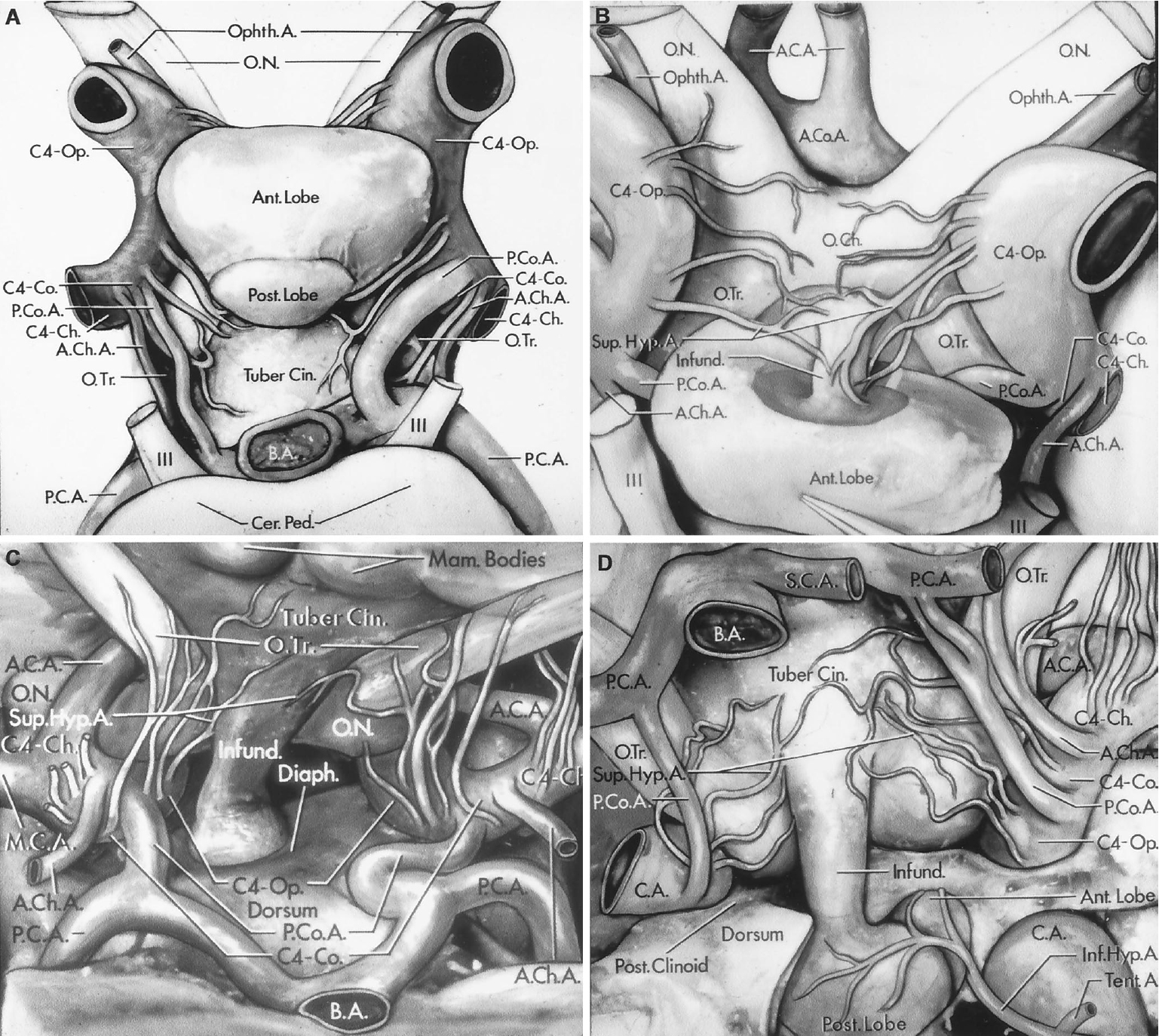Figure 8.16. Relationships in the sellar and suprasellar areas. A, inferior view. The supraclinoid portion of the carotid artery is divided into three segments based on the site of origin of its major branches: the ophthalmic segment extends from the origin of the ophthalmic artery to the origin of the posterior communicating artery; the communicating segment extends from the origin of the posterior communicating artery to the origin of the anterior choroidal artery; and the choroidal segment extends from the origin of the anterior choroidal artery to the bifurcation of the carotid artery. The optic nerves are above the ophthalmic arteries. The optic chiasm and optic tracts are above the anterior and posterior lobes of the pituitary gland. The tuber cinereum is anterior to the apex of the basilar artery. The posterior cerebral arteries pass around the cerebral peduncles above the oculomotor nerves. The perforating branches arising from the ophthalmic segment pass to the anterior lobe, optic nerve, and chiasm and to the anterior part of the tuber cinereum. A single perforating branch arises from the communicating segment on each side and passes upward to the optic tract and the floor of the third ventricle. B, the pituitary gland has been reflected backward to show the superior hypophyseal arteries passing from the ophthalmic segments to the infundibulum. The anterior cerebral and the anterior communicating arteries pass above the optic chiasm. C, posterior view. The basilar artery and brainstem have been divided and the floor of the third ventricle elevated to provide this posterior view of the arteries in the suprasellar area. The tuber cinereum and mamillary bodies are exposed between the optic tracts. D, the right half of the dorsum and the right posterior clinoid process have been removed to expose the anterior and posterior lobes of the pituitary gland. The basilar, posterior cerebral, and superior cerebellar arteries have been elevated to expose the pituitary 