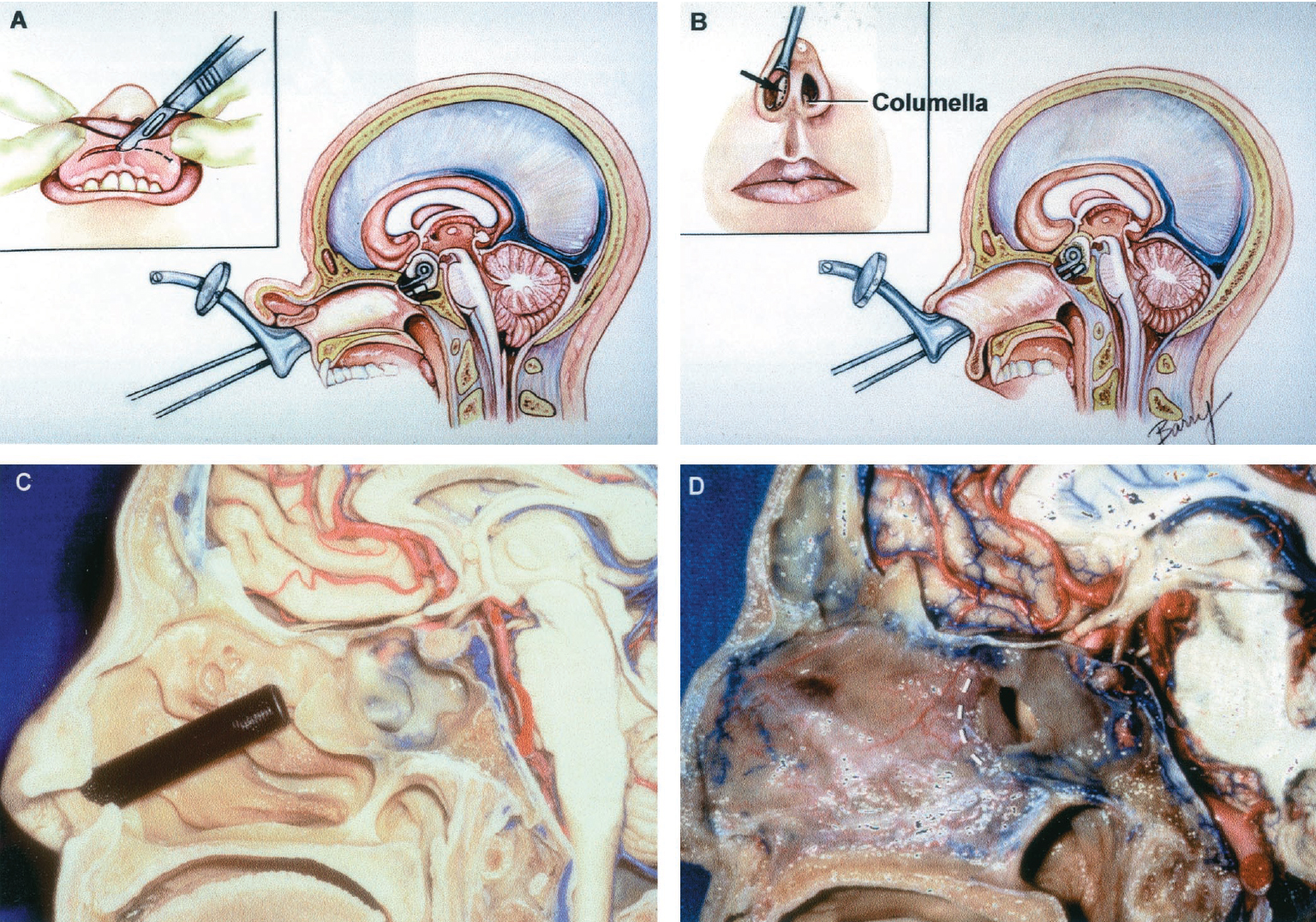 Figure 8.17 (A–D). Sublabial, transseptal, and endonasal approaches to the sphenoid sinus. A, the sublabial approach is directed under the lip and submucosally along the side of the nasal septum to the face of the sphenoid. The inset shows the site of the gingivobuccal incision and the direction of insertion of the speculum under the lip to reach the nasal cavity. B, the transseptal approach is directed through a small incision in the mucocutaneous junction along the side of the columella and submucosally along the septum to the sphenoid face. C, the Rhoton endonasal transsphenoidal speculum has been inserted along the route of the endonasal transsphenoidal approach directed through one nostril, between the conchae laterally and the nasal septum medially. D, the broken line shows the area where the posterior septum is separated from the face of the sphenoid sinus. Sphen., sphenoid. (Images courtesy of AL Rhoton, Jr.)