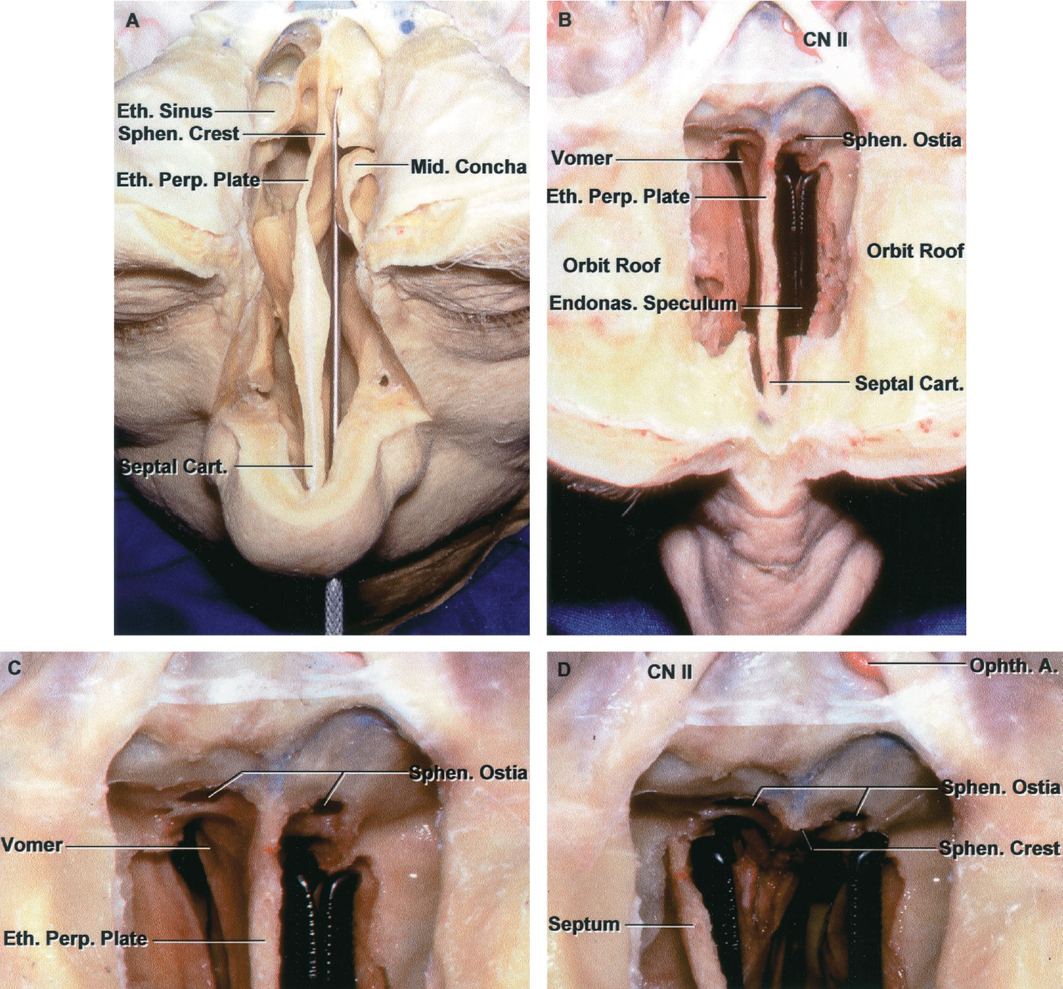 Figure 8.18. Anterosuperior view of the endonasal route to the sphenoid sinus and sellar region. A, the roof of the nasal cavity and medial part of the floor of the anterior fossa have been removed to expose the endonasal route to the sellar region. The speculum in the endonasal approach is advanced along the course of the probe. It is advanced in one nostril and passed upward between the nasal septum and the concha to the sphenoid face. The posterior part of the middle concha provides a relative obstacle to exposing the face of the sphenoid in this case, but the concha can be displaced laterally by the blades of the speculum. A prominent concha, like this, may tend to deflect the speculum to the opposite side, unless care is taken to center the speculum blades on each side of the midline vertical crest on the sphenoid face. The posterior ethmoid air cells are positioned anterior to the lateral part of the sphenoid face. The nasal septum, in this case, is deviated to the right. B, the endonasal speculum has been advanced to the sphenoid face in the area below the sphenoid ostia. The septum at this level is formed by the perpendicular plate of the ethmoid. The septum below is formed by the vomer. C, enlarged view of the speculum blades at the face of the sphenoid. The mucosa is opened in the area below the sphenoid ostia and elevated in a small area so that the blades can be inserted submucosally. D, opening the speculum separates a small section of the septum from the sphenoid face and displaces the septum to the opposite side. The speculum blades can then be advanced submucosally along the sphenoid face bilaterally. The crest on the sphenoid face formed by the ethmoid perpendicular plate and vomer should be positioned in the midline between the blades of the speculum. A., artery; Cart., cartilage; CN, cranial nerve; Endonas., endonasal; Eth., ethmoid; Mid., middle; Ophth., ophthalmic; Perp., perpendicular; Sept., septal; Sphen., sphenoid. (Images courtesy of AL Rho