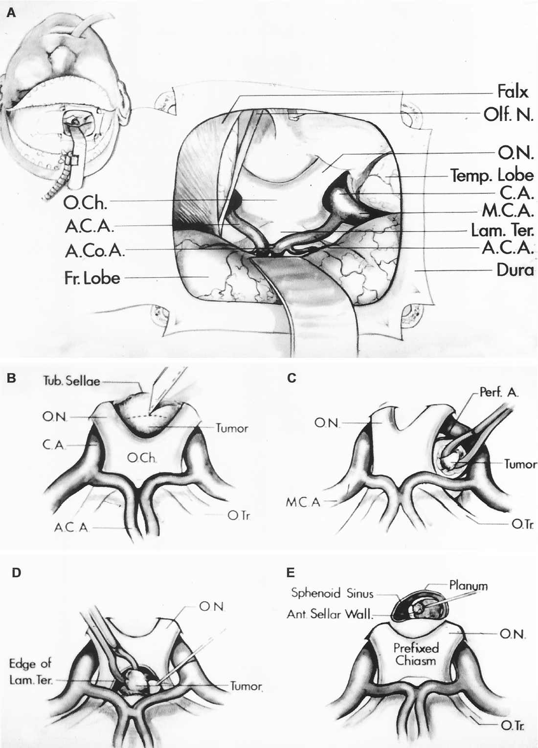 Figure 8.22. Subfrontal approach to the anteroinferior part of the third ventricle. A, Left: Scalp incision, right frontal bone flap, dural incision, and placement of self retaining retractor. Right: Intracranial exposure with the frontal lobe retracted. The optic nerves, optic chiasm, and optic tracts are stretched upward if a tumor is present. The right olfactory nerve has been divided, but the left one is intact. The anterior cerebral and anterior communicating arteries cross the optic tracts and the lamina terminalis. The temporal lobe and the carotid and middle cerebral arteries are lateral to the optic chiasm. B–E, different subfrontal approaches to the anteroinferior part of the third ventricle. B, subchiasmatic approach. The tumor is exposed between the optic nerves, the optic chiasm, and the tuberculum sellae. A knife incises the tumor capsule. C, opticocarotid approach. This approach is directed through the interval between the optic nerve and the anterior cerebral and carotid arteries. A cup forceps reaches through a hole in the tumor capsule. Perforating arteries cross the interval between the carotid artery and the optic nerve. D, lamina terminalis approach. The lamina terminalis is above the optic chiasm and between the optic tracts. The lamina terminalis has been opened, and a cup forceps reaches between its edges to remove tumor in the anteroinferior part of the third ventricle. E, transfrontal-transsphenoidal approach. A prefixed optic chiasm blocks the subchiasmatic approach to a tumor. The tumor is exposed by removing the posterior part of the planum sphenoidale and the tuberculum sellae to expose the sphenoid sinus. The sinus mucosa is depressed inferiorly and the anterior sellar wall is removed to expose the tumor. A., artery; A.C.A., anterior cerebral artery; A.Co.A., anterior communicating artery; Ant., anterior; C.A., carotid artery; Fr., frontal; Lam., lamina; M.C.A., middle cerebral artery; N., nerve; O.Ch., optic chiasm; Olf., olfactory; O