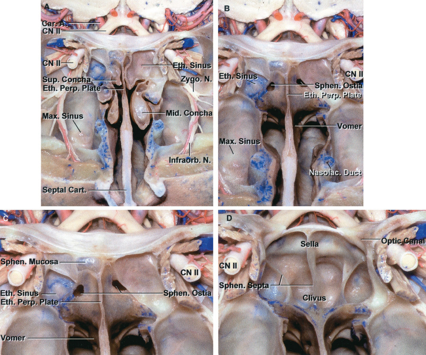 Figure 8.4 (A–D). Transnasal route to the sphenoid sinus and sella. A, the cross section extends across the nasal cavity, superior and middle turbinates, maxillary sinuses, the orbits near the apex and the ethmoidal sinuses in front of the sphenoid sinus. The zygomatic and infraorbital nerves arise from the maxillary nerve in the pterygopalatine fossa, which is located behind the posterior maxillary wall. The nasal septum is formed above by the perpendicular ethmoid plate, below by the vomer, and anteriorly by the cartilaginous septum. B, the concha and posterior ethmoid air cells have been removed to expose the vomer and the anterior wall of the sphenoid sinus and the sphenoid ostia. The nasolacrimal duct descends along the lateral wall of the nasal cavity. C, enlarged view. The perpendicular ethmoid plate joins the anterior sphenoid face, and the vomer extends upward to join the inferior sphenoid wall, both in the midline. The posterior ethmoid air cells are located anterior to the lateral part of the sphenoid face and overlap the superolateral margins of the sphenoid ostia. D, the anterior face of the sphenoid has been removed to expose the multiseptated sphenoid sinus and the anterior wall of the sella. The bony prominences over the optic canals are situated in the superolateral margins of the sinus. A., artery; Car., carotid; Cart., cartilage; Cav., cavernous; CN, cranial nerve; Eth., ethmoid; Gang., ganglion; Hyp., hypophyseal; Infraorb., infraorbital; Max., maxillary; Mid., middle; N., nerve; Nasolac., nasolacrimal; Ophth., ophthalmic; Perp., perpendicular; Pet., petrous; Pit., pituitary; Proc., process; Pteryg., pterygoid; Pterygopal., pterygopalatine; Seg., segment; Sept., septal; Sphen., sphenoid; Sup., superior. (Images courtesy of AL Rhoton, Jr.)
