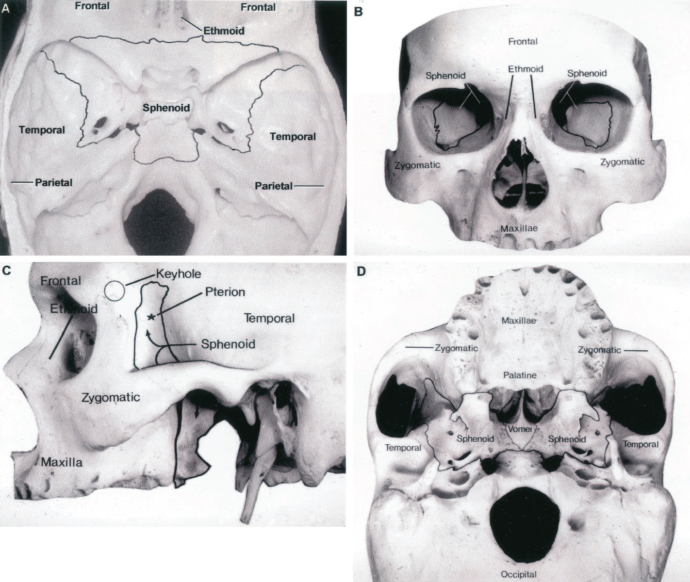 Figure 8.5 (A–D). Osseous relationships of the sphenoid bone. The sphenoid bone is outlined in each view. A, superior view. B, anterior view. C, lateral view. D, inferior view. For., foramen; Lat., lateral; Med., medial; Pal., palato-; Sup., superior; Temp., temporal. (From, Rhoton AL Jr, Hardy DG, Chambers SM: Microsurgical anatomy and dissection of the sphenoid bone, cavernous sinus and sellar region. Surg Neurol 12:63–104, 1979 [21].)