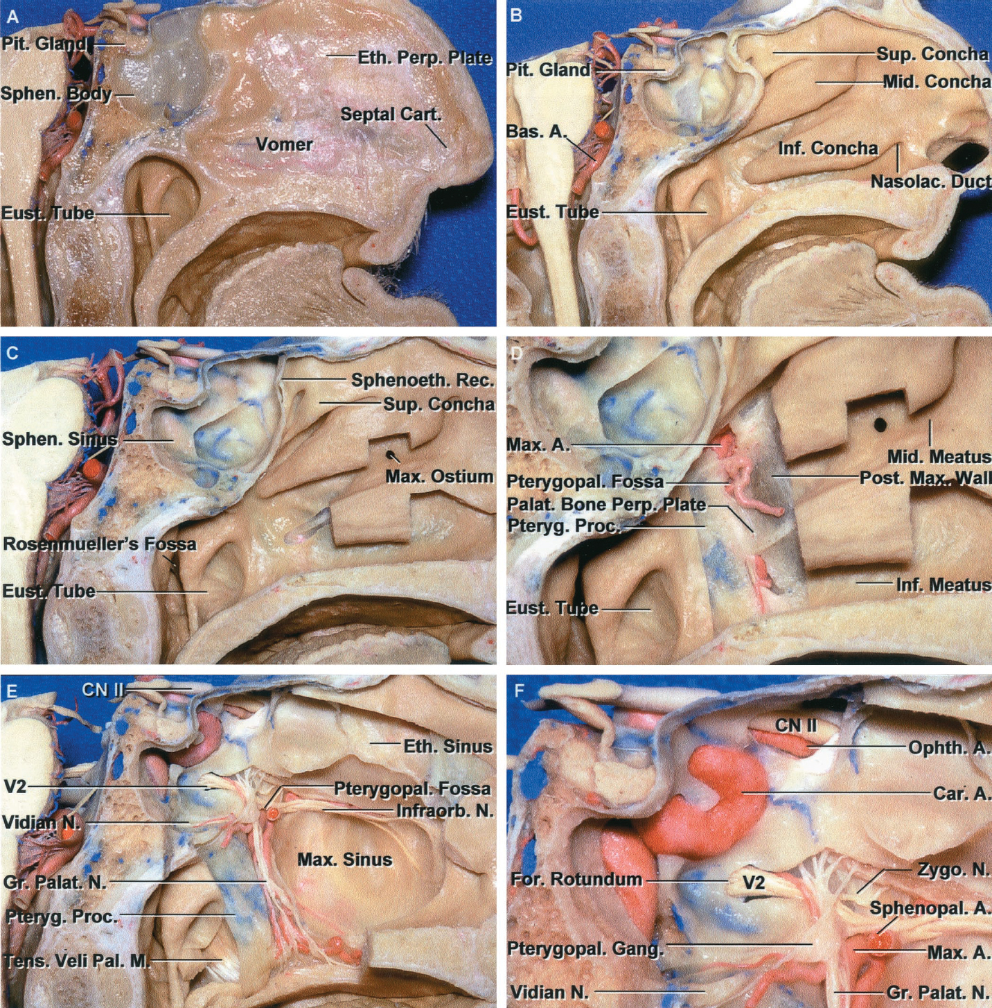Figure 8.8. Nasal pathway to the sphenoid sinus. Stepwise dissections showing the structures that form the lateral limit of the transnasal route to the sphenoid sinus and sella. A, sagittal section to right of the midline. The nasal septum, along which the transsphenoidal approach is directed, is formed above by the perpendicular plate of the ethmoid, anteriorly by the nasal septal cartilage, and below by the vomer. The vomer articulates with the anteroinferior part of the sphenoid body, and the perpendicular plate articulates with the anterior face. The sphenoid sinus is located in the body of the sphenoid bone. B, the sagittal section has been extended to the right of the midline. The nasal concha and meatus and the eustachian tubes are in the lateral margin of the exposure. C, a portion of the middle and inferior turbinates has been removed. The ostia of the maxillary and frontal sinuses opens into the middle meatus located below the middle turbinate. The nasolacrimal duct opens below the lower turbinate into the inferior meatus. Rosenmüller's fossa is located behind the eustachian tube. D, the mucosa in the lateral margin of the nasal cavity and the posterior part of the inferior and middle turbinates have been removed to expose the pterygoid process and the posterior maxillary wall, which form the posterior and anterior boundaries of the pterygopalatine fossa, respectively. The eustachian tube opens into the nasopharynx at the posterior edge of the pterygoid process. The terminal branches of the maxillary artery pass through the pterygopalatine fossa, located between the posterior maxillary wall and the pterygoid process, to enter the posterosuperior part of the nasal cavity at the anteroinferior margin of the sphenoid sinus. The medial wall of the pterygopalatine fossa is formed by the perpendicular plate of the palatine bone. E, the medial wall of the maxillary sinus has been opened to expose the infraorbital nerve, which arises in the pterygopalatine fossa a