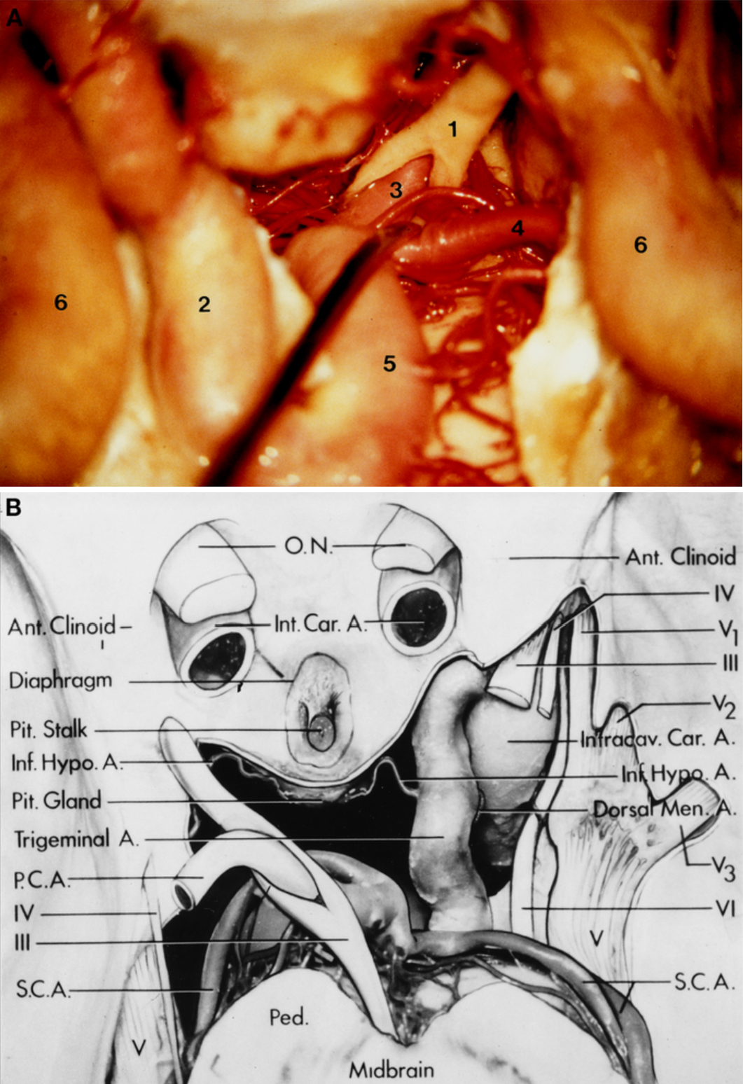Figure 2 (A–B). A, photograph (inferior view) showing the fenestrated left-sided oculomotor nerve encircling the left posterior cerebral artery. 1, oculomotor nerve;2, PTA;3, posterior cerebral artery;4, left superior cerebellar artery; 5, basilar artery; 6, intracavernous carotid artery. B, illustration (superior view) showing the sellar and parasellar region. The dura mater has been removed from the superior, lateral, and posterior walls of the cavernous sinus, exposing the intracavernous carotid artery (Intracav. Car. A.) and the PTA (Trigeminal A.). The left-sided oculomotor nerve (III) is fenestrated around the left posterior cerebral artery (P.C.A.) just after it has emerged from the midbrain. A duplicated superior cerebellar artery (S.C.A.) is seen in the right side. There is also no direct relationship between the PTA and the abducens nerve (VI). O.N., oculomotor nerve; Ant. clinoid, anterior clinoid process; Int. Car. A., internal carotid artery; Pit. Stalk, pituitary stalk; Inf. Hypo A., inferior hypophyseal artery; Pit. Gland, pituitary gland; Dorsal Men. A., dorsal meningeal artery; Ped., peduncle;V1, first ophthalmic branch of the trigeminal nerve;V2, maxillary branch of the trigeminal nerve;V3, mandibular branch of the trigeminal nerve; IV, IVth cranial nerve; V, Vth cranial nerve. (Images courtesy of AL Rhoton, Jr.)