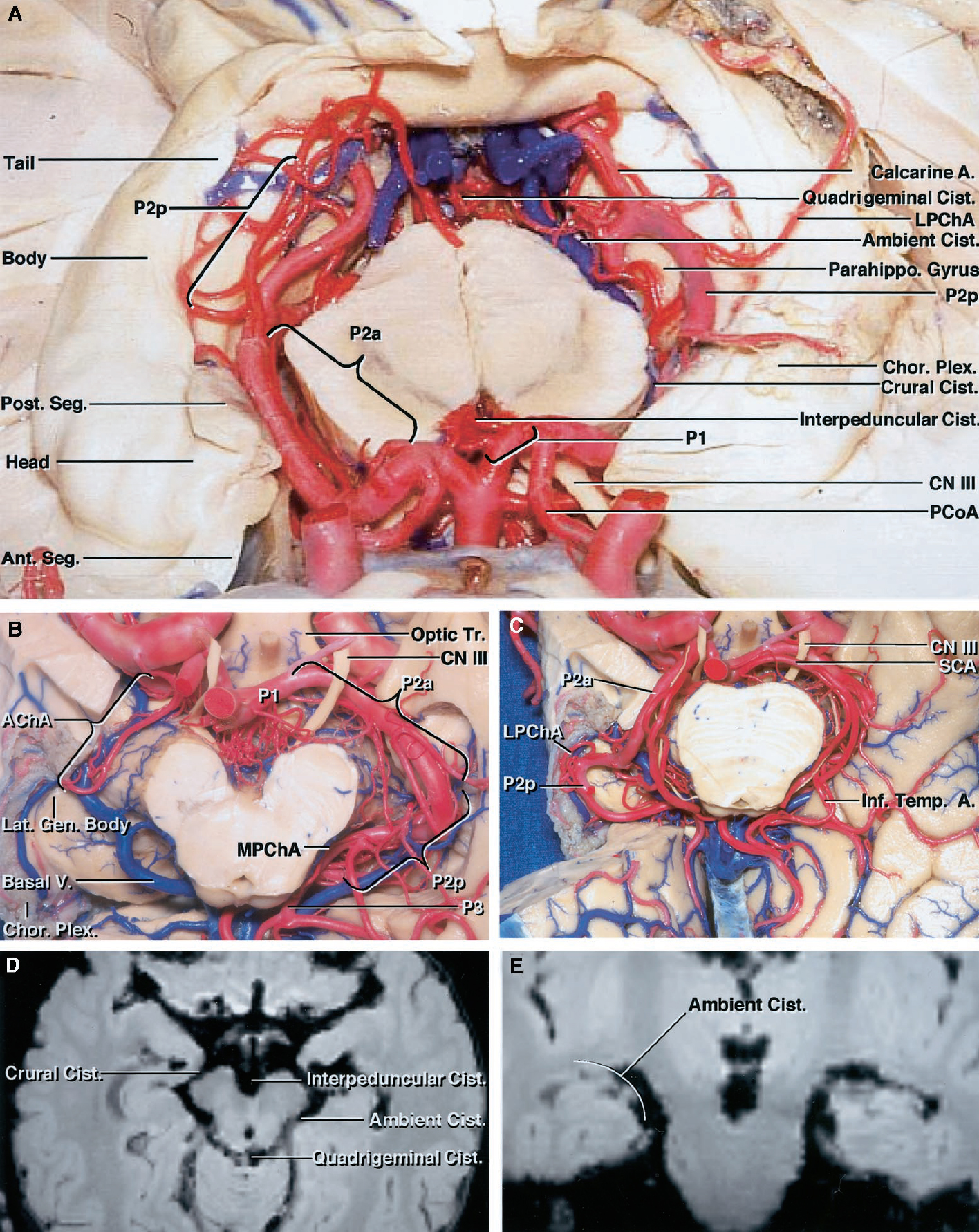 "Figure 1. A, specimen showing superior view of the perimesencephalic cisterns. The perimesencephalic cisterns include the interpeduncular, crural, ambient, and quadrigeminal cisterns surrounding the midbrain. The interpeduncular cistern lies between the cerebral peduncles. The crural cistern lies between the posterior segment of the uncus and the cerebral peduncle. The ambient cistern extends from the posterior edge of the crural cistern to the lateral edge of the midbrain colliculi. The head, body, and tail of the hippocampus and the choroid plexus are exposed in the floor of the temporal horn. Note how the right P2p courses above the medial edge of the parahippocampal gyrus, whereas the left P2p courses medial to the gyrus. B, specimen showing inferior view of the basal cisterns. The right P2a and P2p have been removed to expose the roof of the crural and ambient cisterns. The lower part of the temporal lobe has been removed to expose the temporal horn and basal cisterns. The anterior choroidal artery enters the choroid plexus in the temporal horn. The lateral geniculate body and optic tract sit in the roof of the cisterns. The P1, P2, and P3 segments; inferior temporal branches; and medial posterior and lateral posterior choroidal arteries are exposed. C, specimen showing anterior inferior temporal lobe below the choroidal fissure removed to expose the relationship between the P2p and choroidal fissure. The choroidal fissure begins at the posterior edge of the posterior uncal segment at the site where the anterior choroidal artery enters the temporal horn to become the plexal portion. Note how the right P2 ascends and courses laterally to reach the upper surface of the medial edge of the parahippocampal gyrus in close proximity to the choroidal fissure. D, axial magnetic resonance imaging scan of a cadaver using the Stealth workstation demonstrating the segments of the perimesencephalic cisterns. E, coronal magnetic resonance imaging scan demonstrates the ""C"" shape of the ambient cistern. A., artery; AChA, anterior choroidal artery; Ant. Seg., anterior segment of uncus; Basal V., basal vein; Body, body of hippocampus; Chor. Plex., choroid plexus; Cist., cistern; CN III, oculomotor nerve; Head, head of hippocampus; Inf. Temp. A., inferior temporal artery; Lat. Gen. Body, lateral geniculate body; LPChA, lateral posterior choroidal artery; MPChA, medial posterior choroidal artery; Optic Tr., optic tract; Parahippo. Gyrus, parahippocampal gyrus; PCoA, posterior communicating artery; Post. Seg., posterior segment of uncus; SCA, superior cerebellar artery; Tail, tail of hippocampus. (Images courtesy of AL Rhoton, Jr.)"