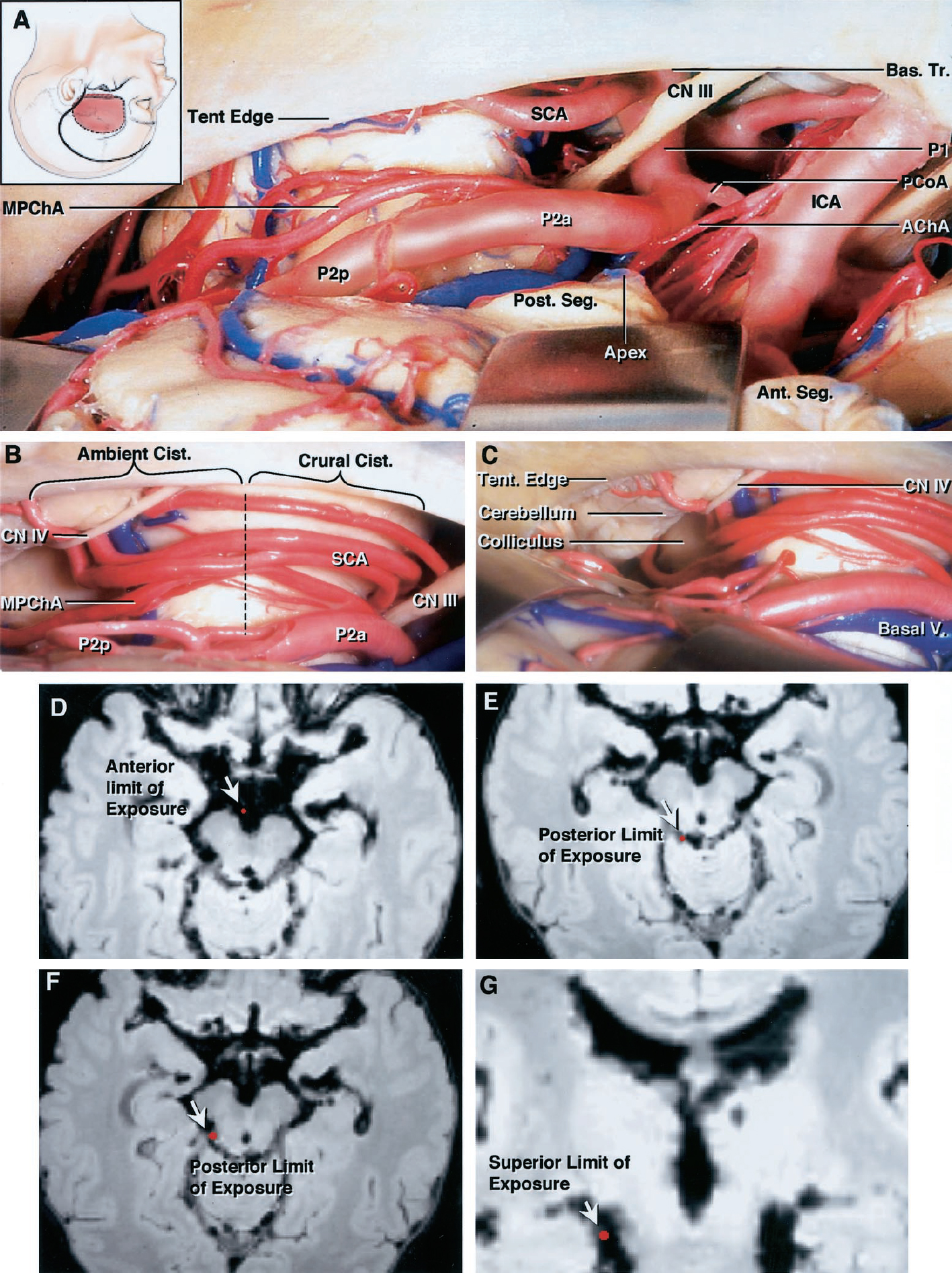 Figure 3. A–C, left subtemporal approach to the perimesencephalic cisterns. A, specimen showing anterior subtemporal approach exposing the interpeduncular and lower half of the crural and ambient cisterns. Structures exposed include the internal carotid, anterior choroidal, posterior communicating, basilar, superior cerebellar and medial posterior choroidal arteries, P1 and P2a, and anterior and posterior segments and apex of the uncus. B, specimen showing middle subtemporal approach exposing the P2a within the crural cistern, P2p within the ambient cistern, medial posterior choroidal and superior cerebellar arteries, trochlear nerve, and tentorial edge. C, specimen showing posterior subtemporal exposure with view into anterior quadrigeminal cistern exposing the collicular plate, trochlear nerve, and basal vein. D–G, Stealth magnetic resonance imaging scans demonstrating the limits (arrows) of the approach. D, left anterior subtemporal exposure provides access to the interpeduncular cistern and across to the medial aspect of the contralateral cerebral peduncle. E, posterior limit of exposure in hemispheres not limited by an anterior position of the vein of Labbé was the lateral part of the quadrigeminal cistern on the side ipsilateral to the approach. F, posterior limit of exposure ipsilateral to the approach in hemispheres in which an anterior position of the vein of Labbé limits temporal lobe retraction. G, superior limit of exposure within the ambient cistern was limited to the lower one-half to two-thirds of the cistern because of the prominence of the medial edge of the parahippocampal gyrus. Reaching the upper part of the cistern would require excessive temporal lobe retraction. AChA, anterior choroidal artery; Ambient, ambient cistern; Ant. Seg., anterior segment of uncus; Apex, apex of uncus; Bas. Tr., basilar trunk; Basal V., basal vein of Rosenthal; CN III, oculomotor nerve; CN IV, trochlear nerve; Crural, crural cistern; ICA, internal carotid artery; SCA, superior cerebellar artery; Tent edge, tentorial edge; MPChA, medial posterior choroidal artery; PCoA, posterior communicating artery; Post. Seg., posterior segment of the uncus. (Images courtesy of AL Rhoton, Jr.)